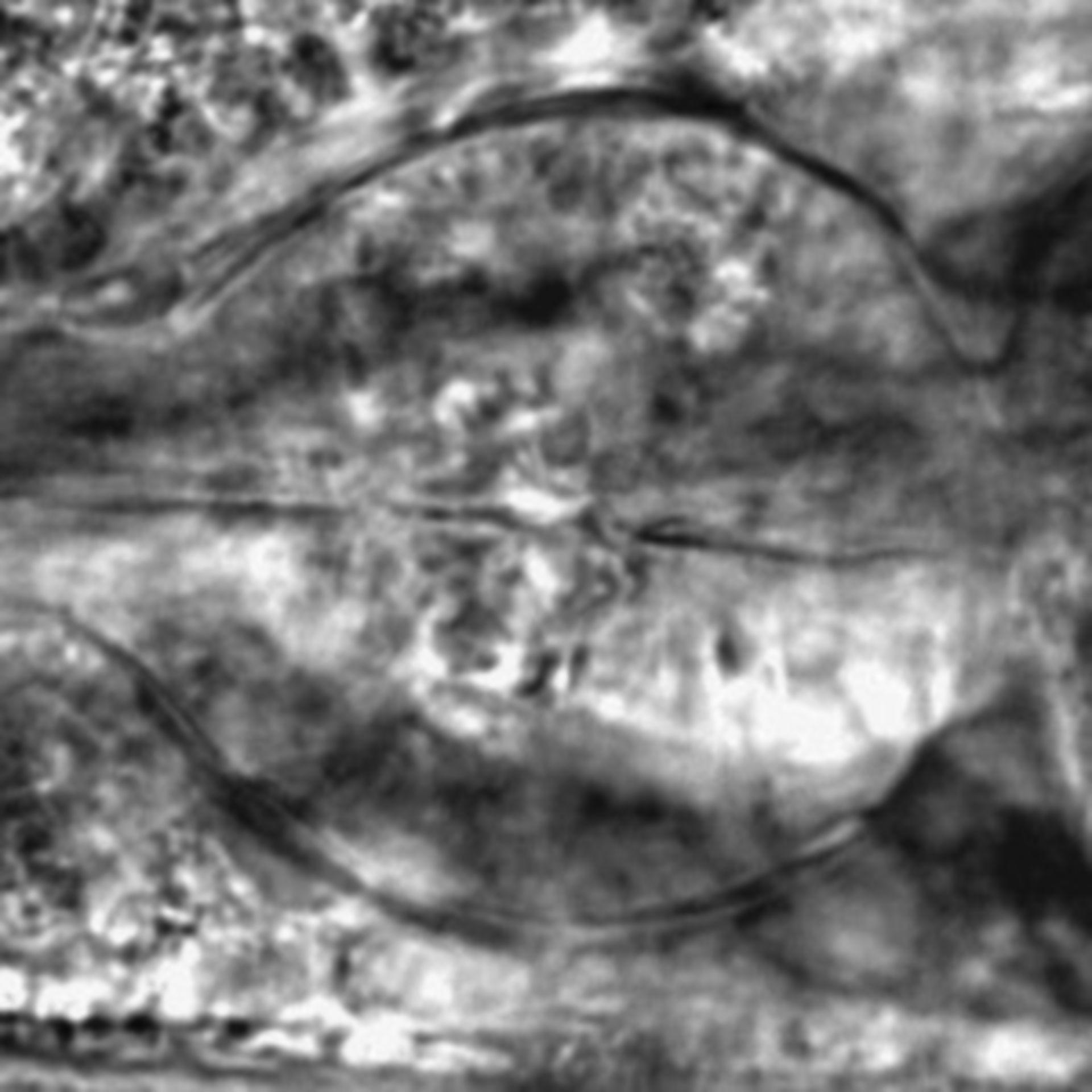 Caenorhabditis elegans - CIL:2788