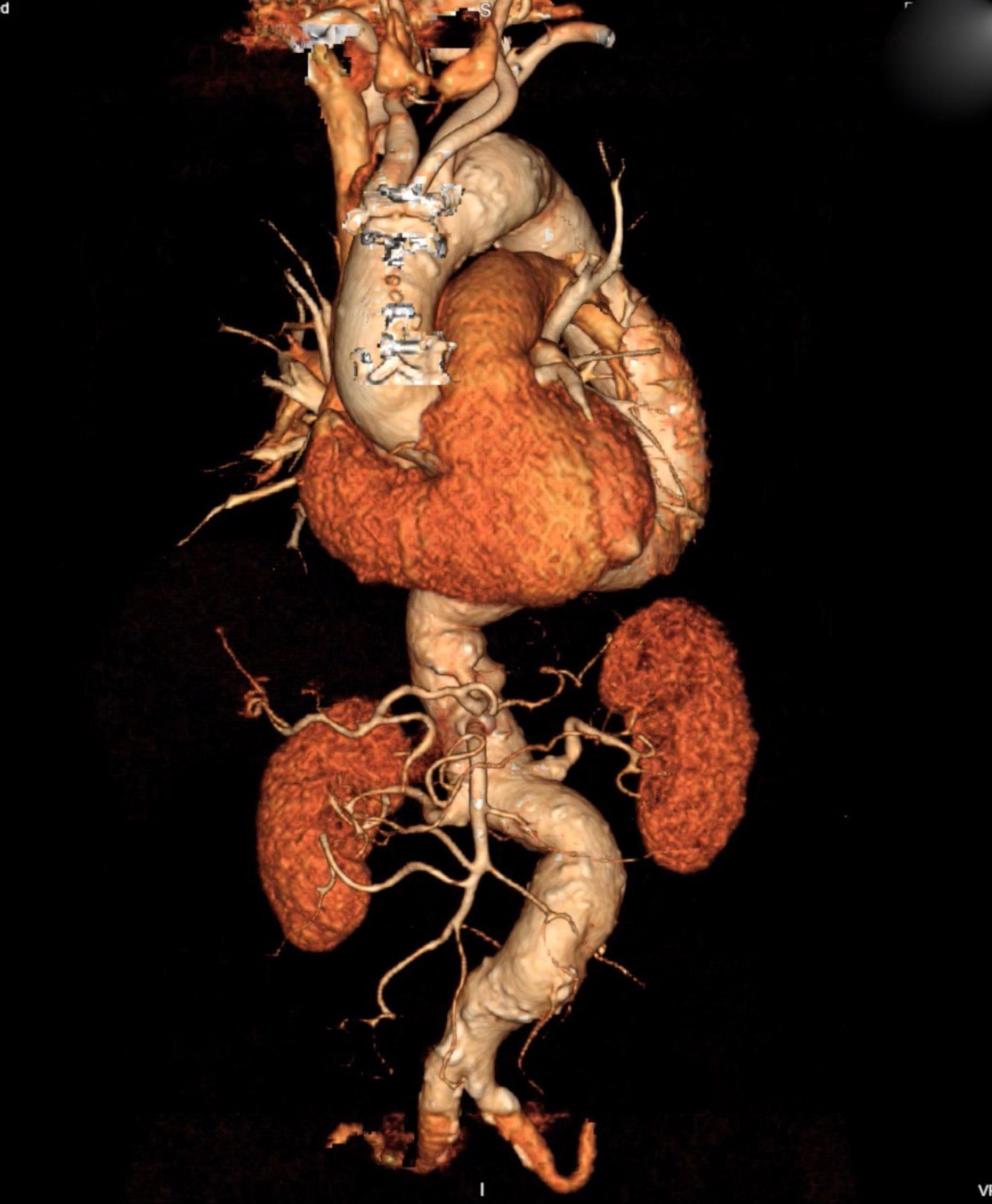 Aorta-3D Rekonstruktion