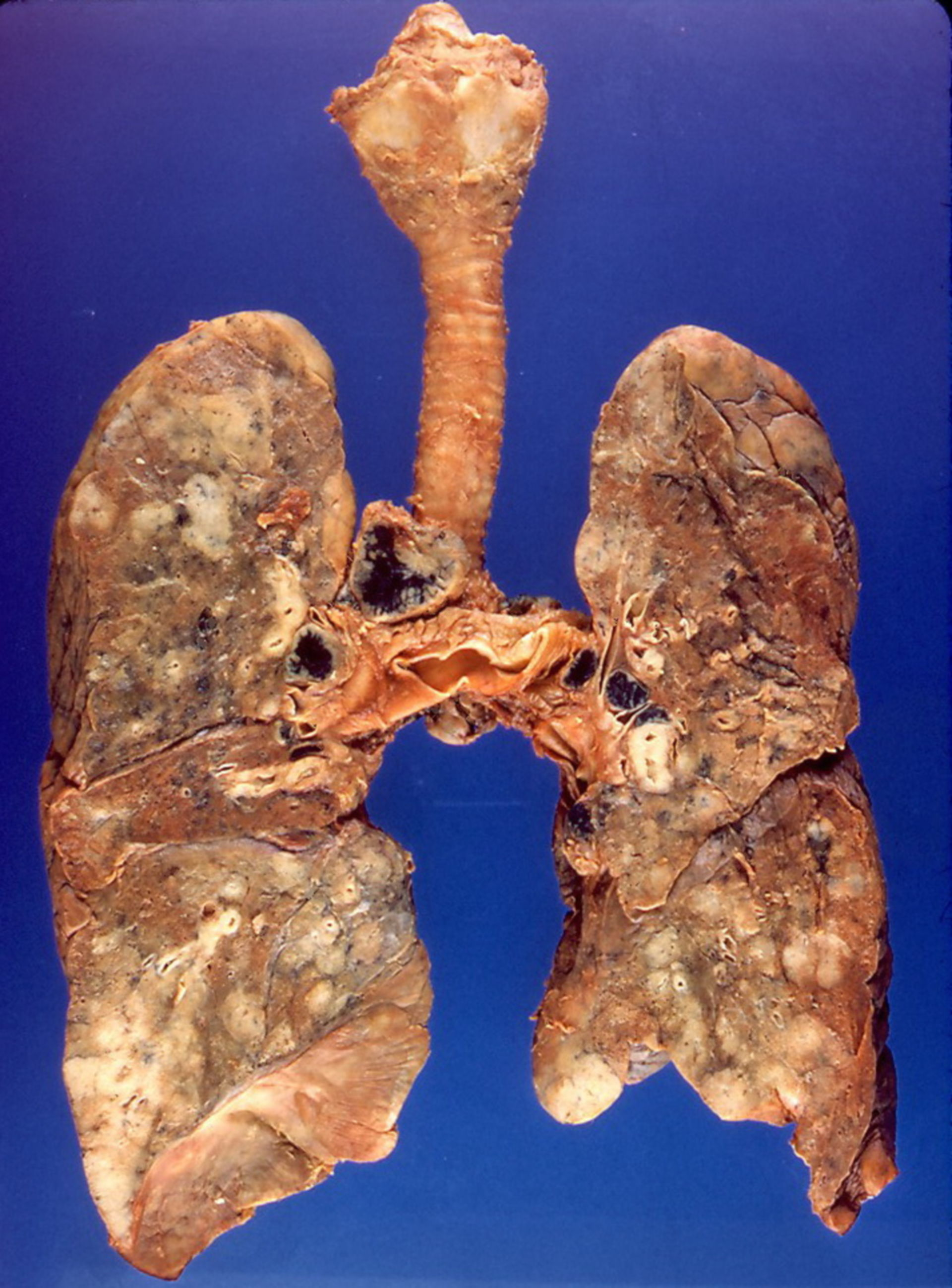 Lymphom (Lunge, Präparat)