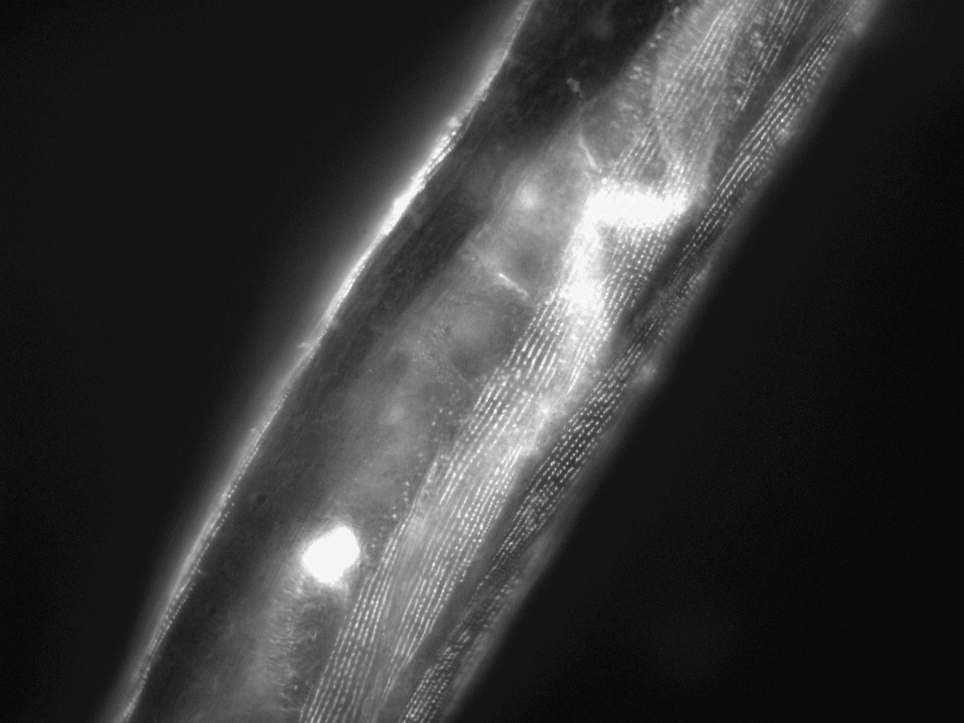 Caenorhabditis elegans (Actin filament) - CIL:1149