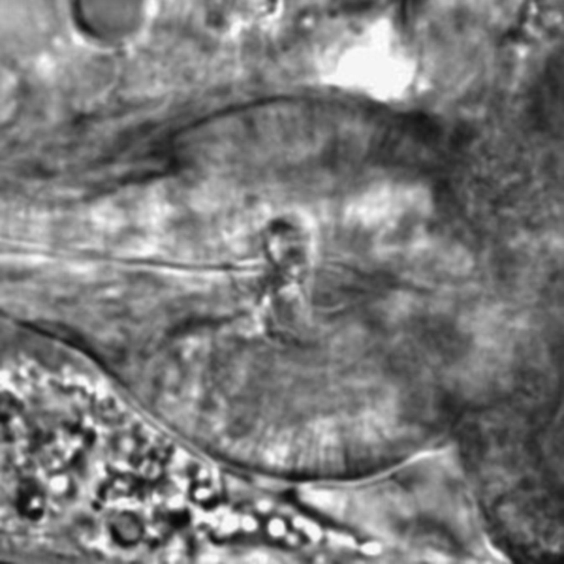 Caenorhabditis elegans - CIL:1762