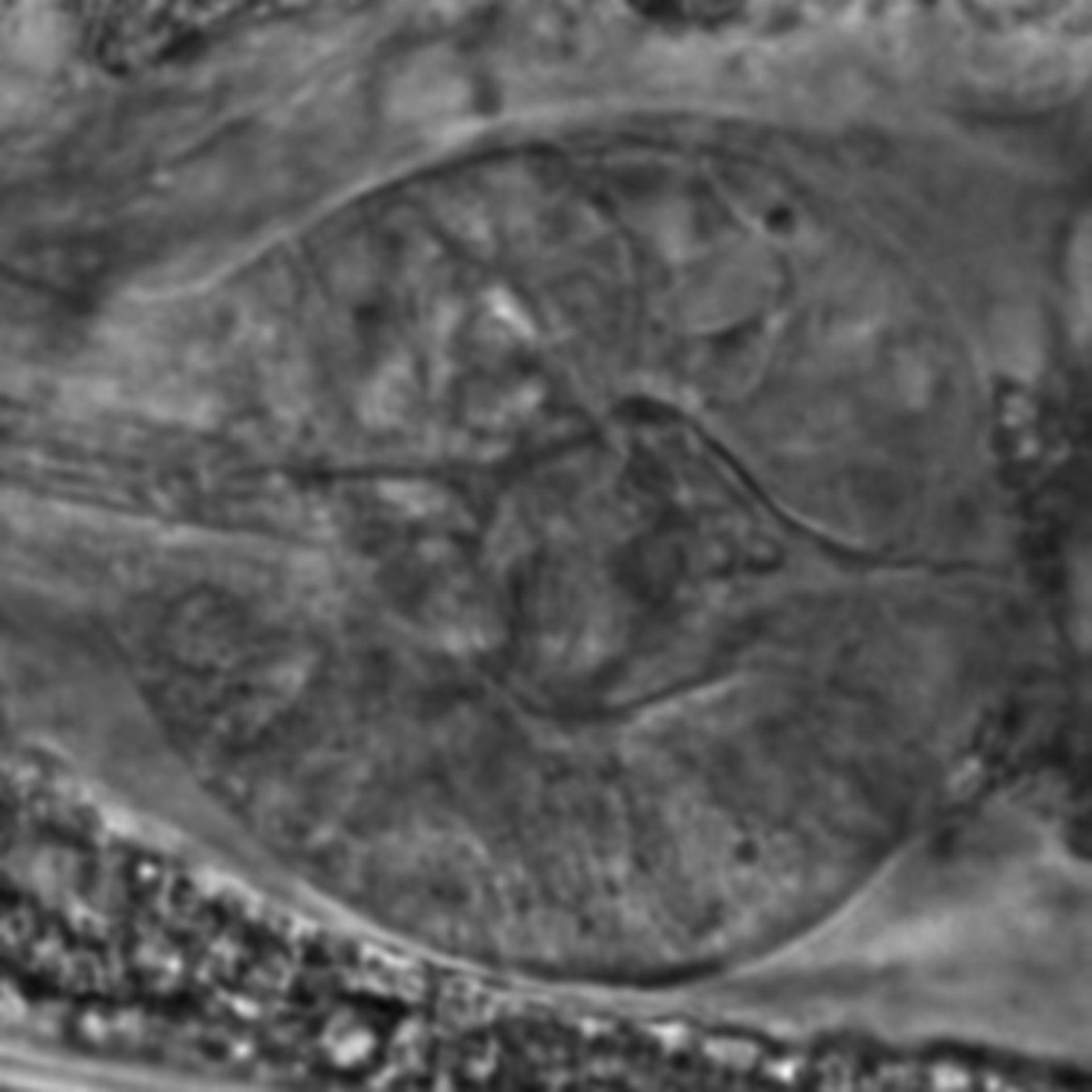 Caenorhabditis elegans - CIL:2665