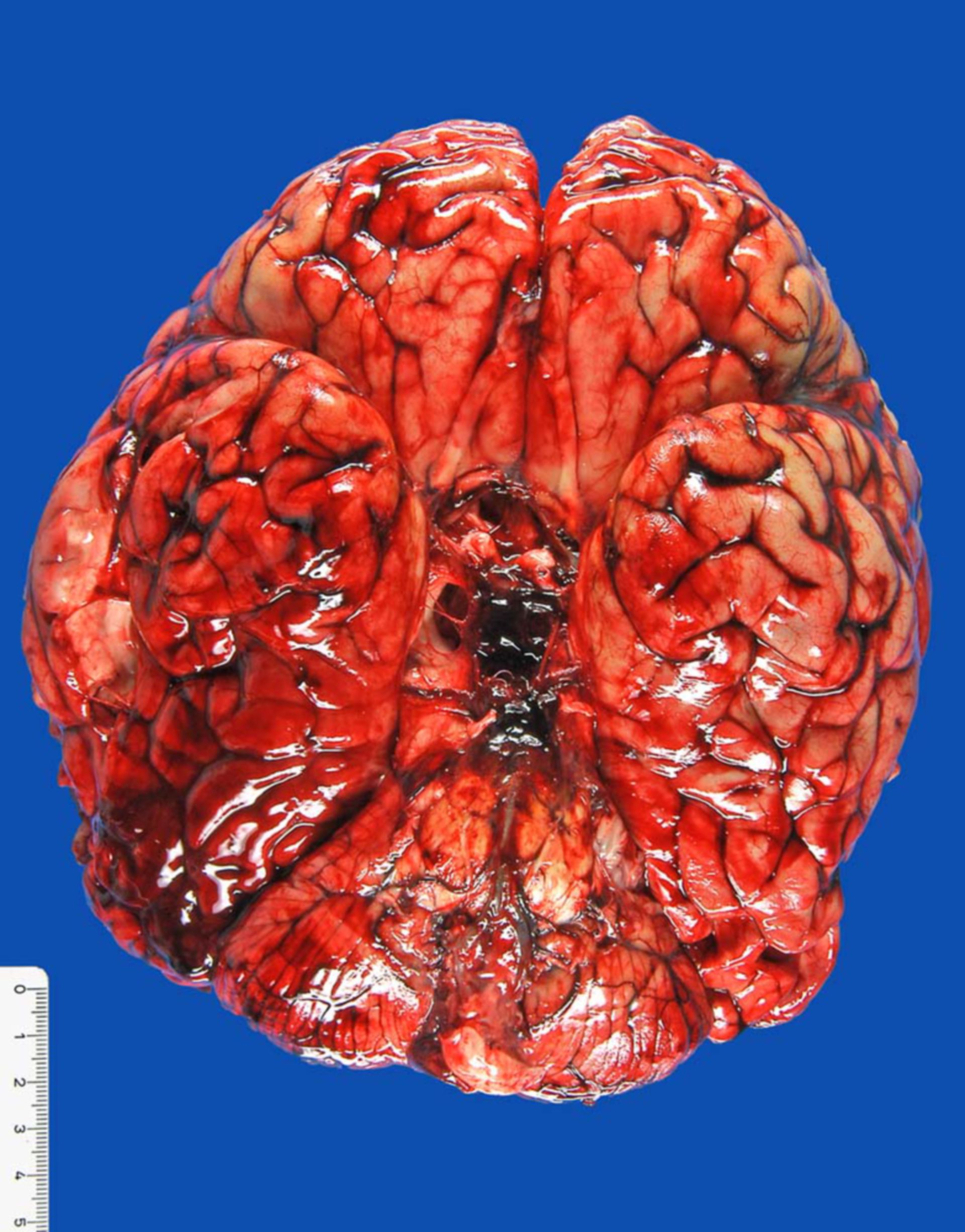 Ruptured aneurysm of the base of the brain, with subarachnoid hemorrhage
