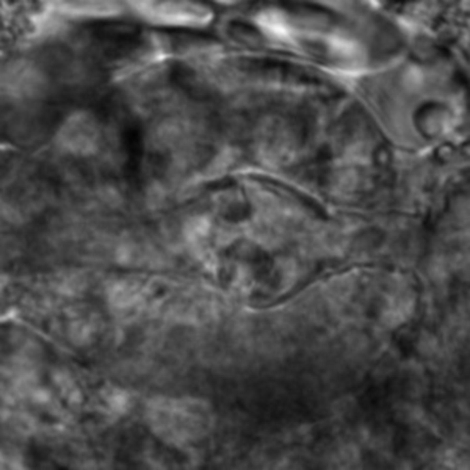 Caenorhabditis elegans - CIL:2751