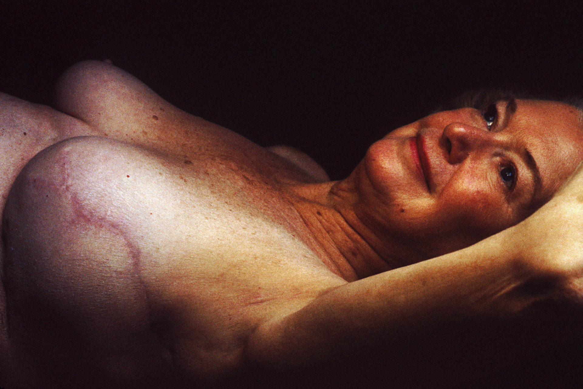 Breast reconstruction (1980)