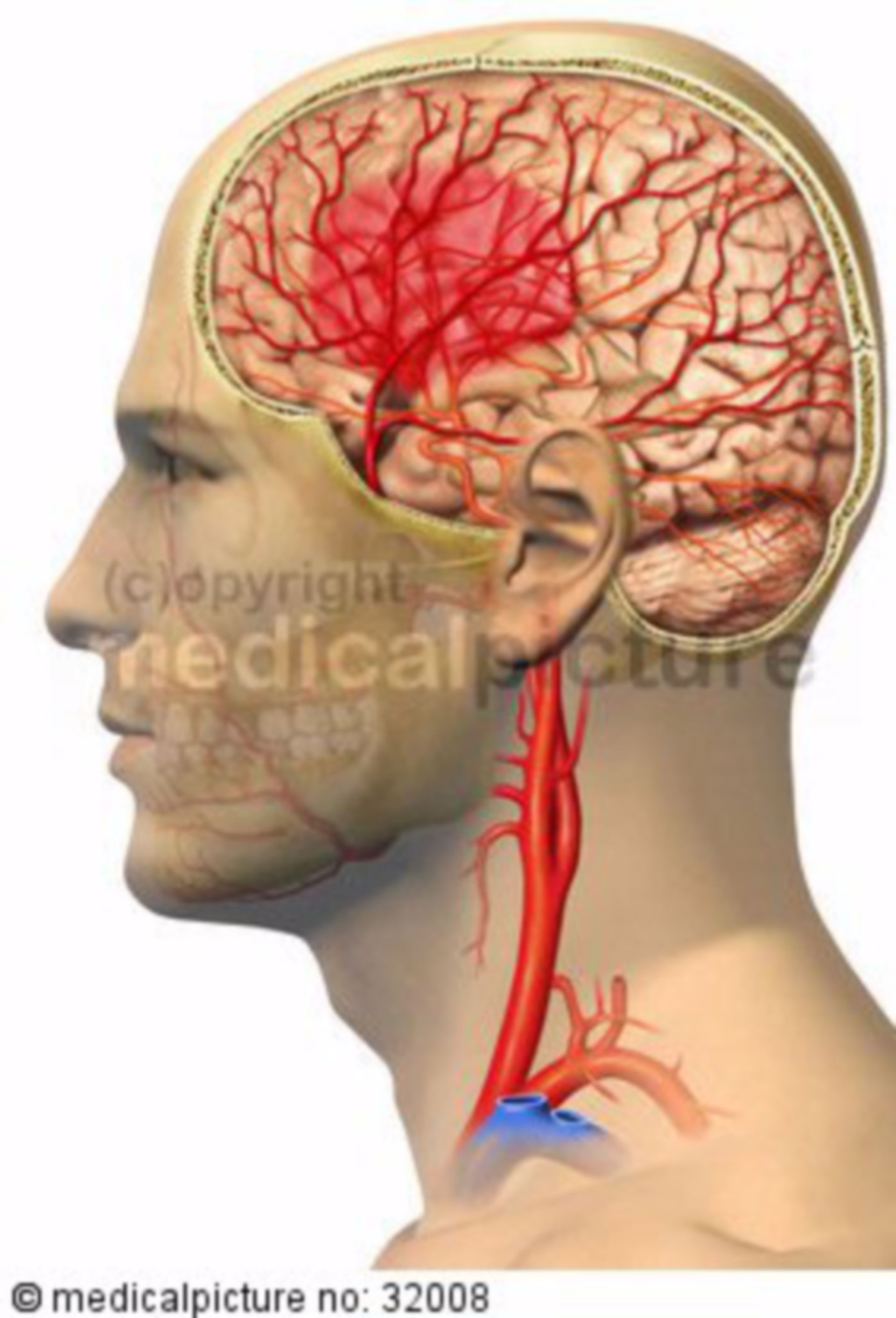 Apoplexy due to cerebral haemorrhage