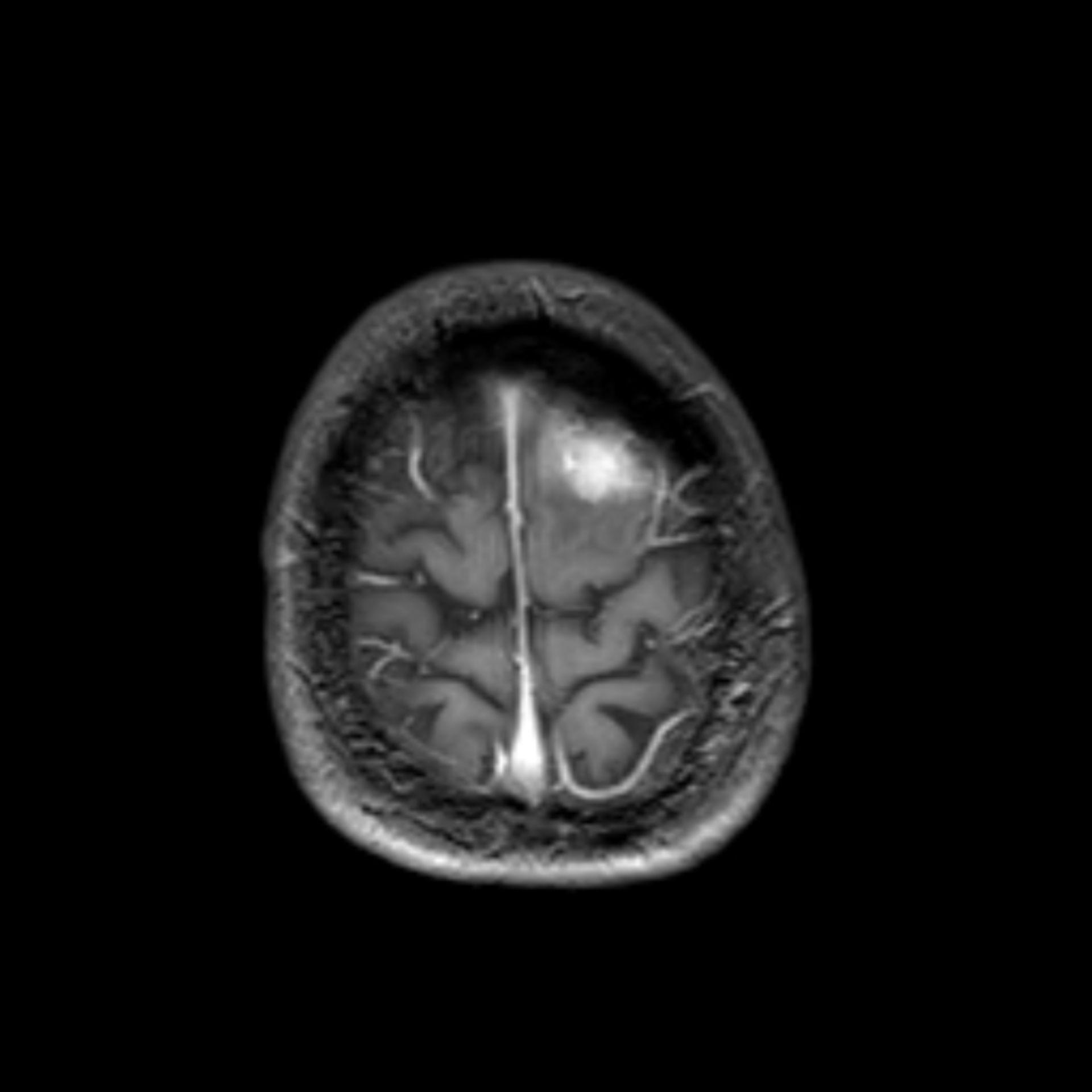 mrt_t1_km_tra3: MRT des Kopfes in transversaler Ebene