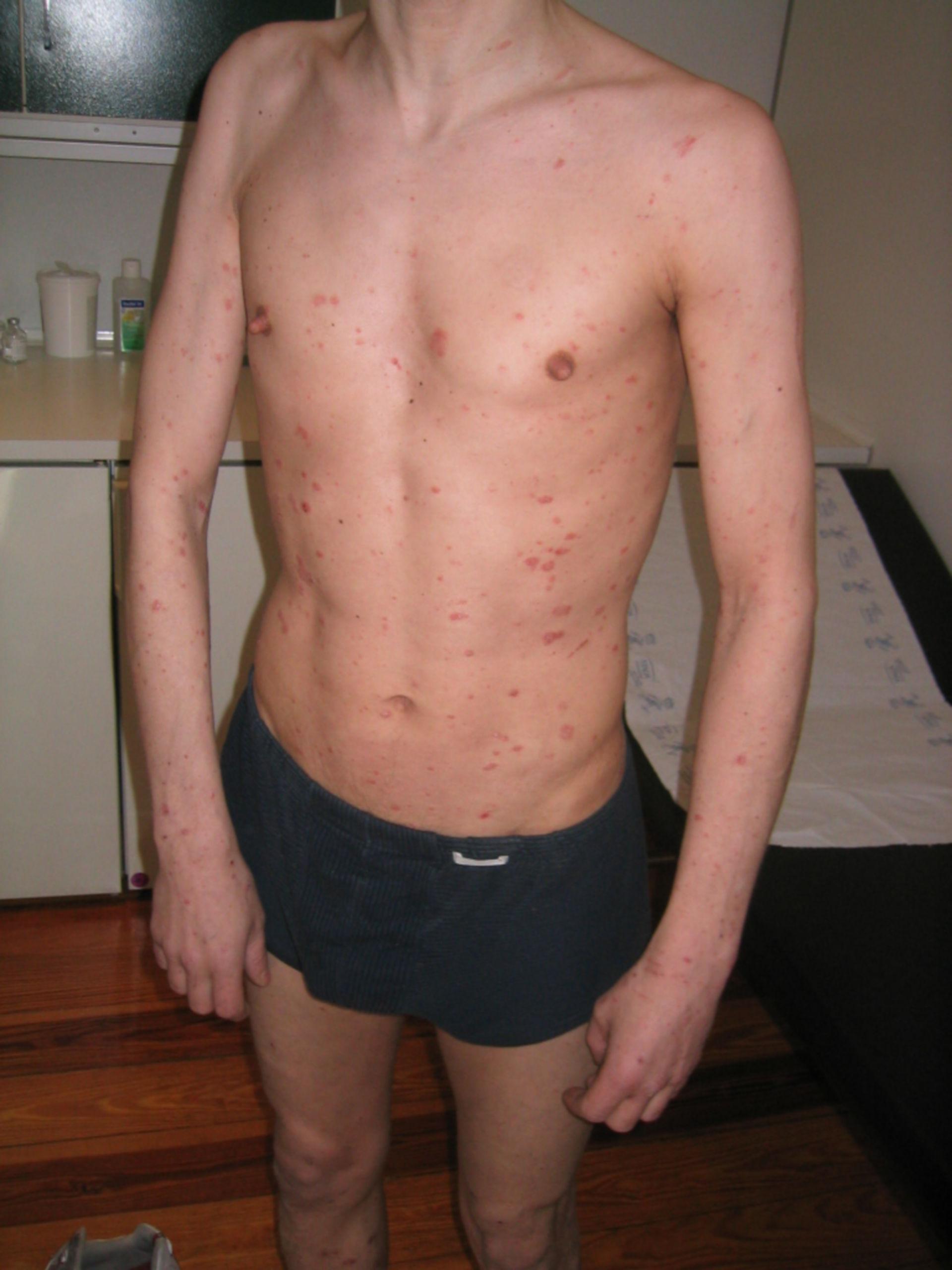 Psoriasis en gotas y del cuero cabelludo por deficiencia inmune