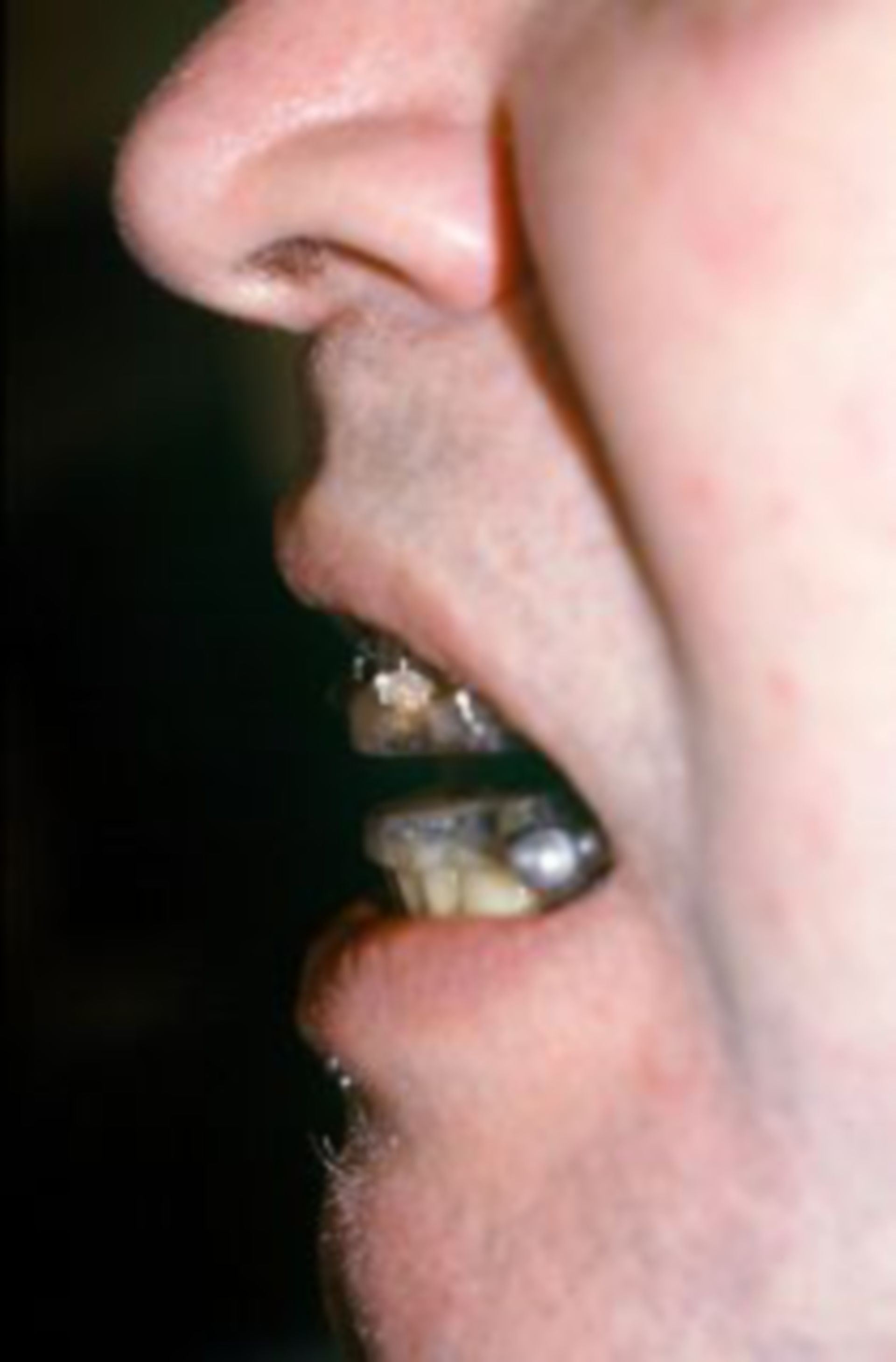 Patient with orthodontic adjustment