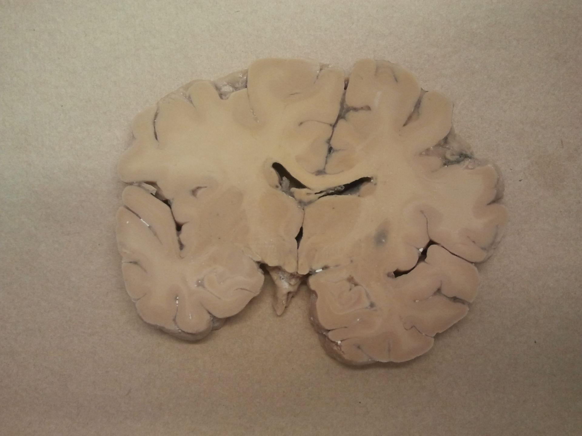 Sezione del cervello con ventricolo laterale con insula C