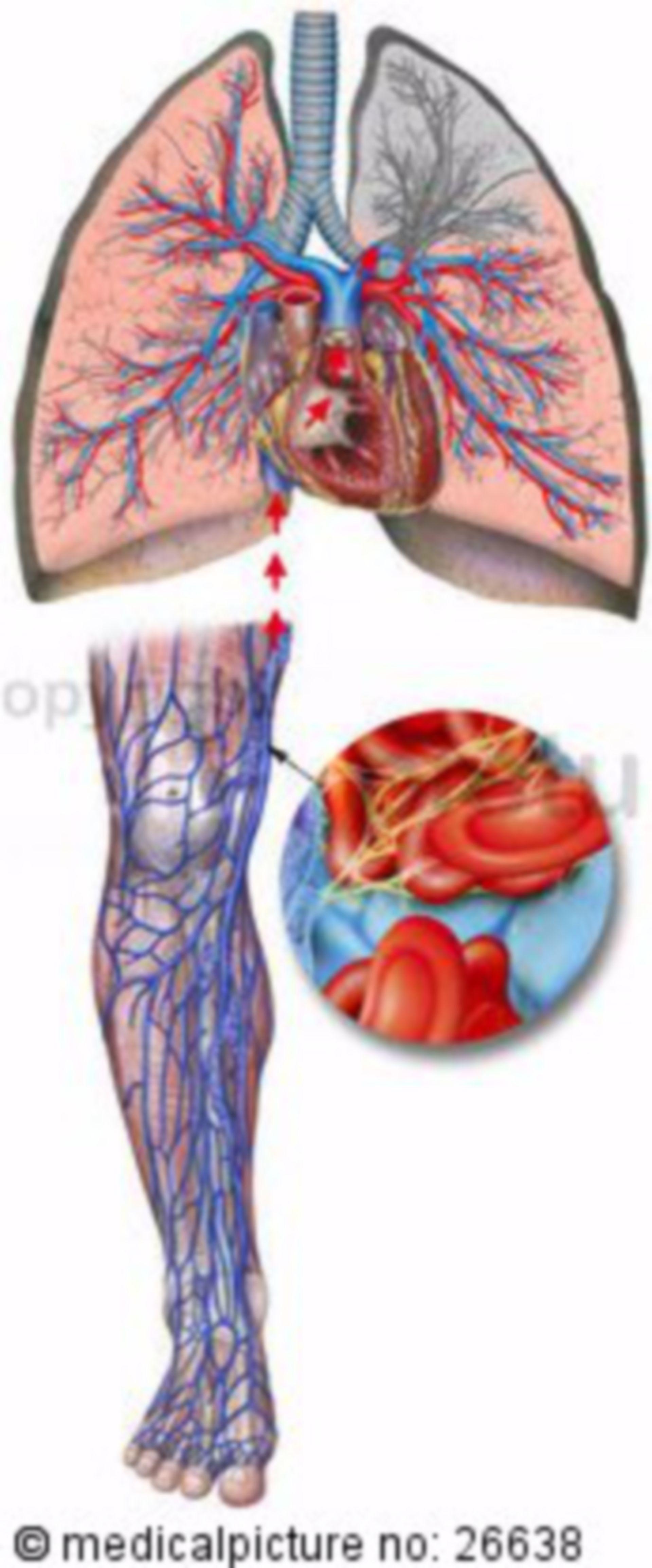 L'embolia polmonare