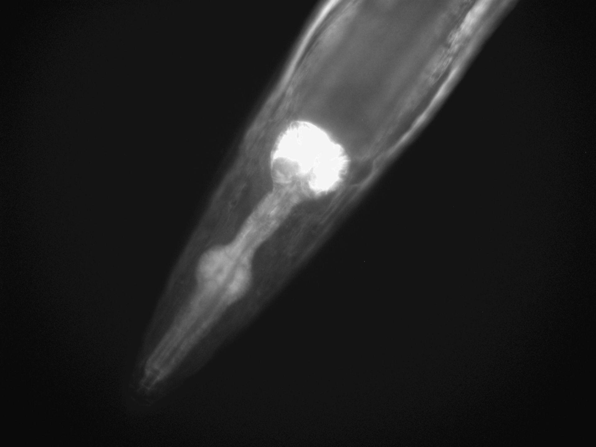 Caenorhabditis elegans (Actin filament) - CIL:1279