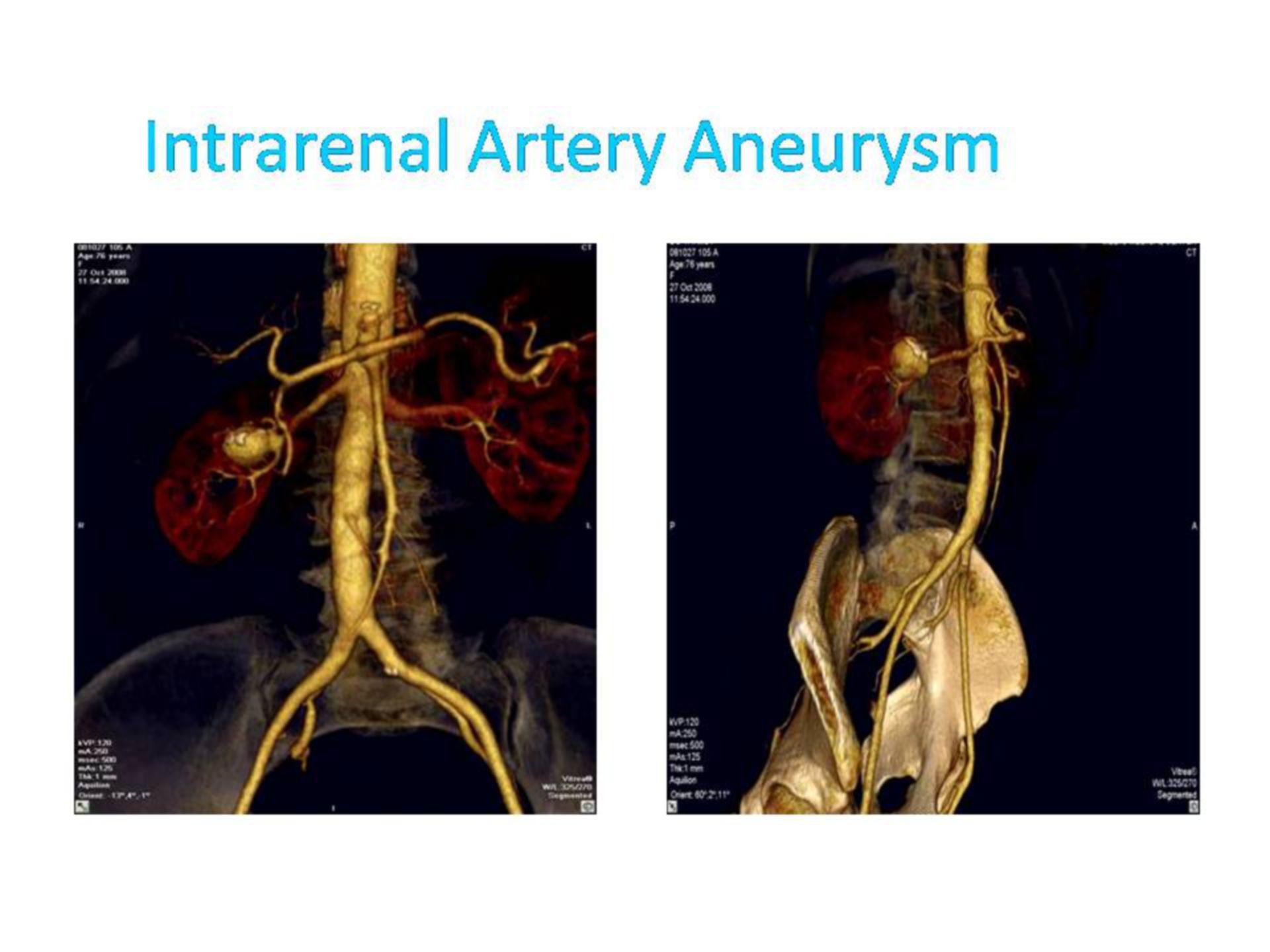 Aneurisma de la arteria renal (2)