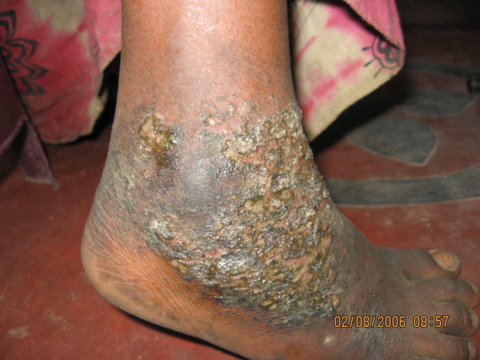 Infezione della pelle