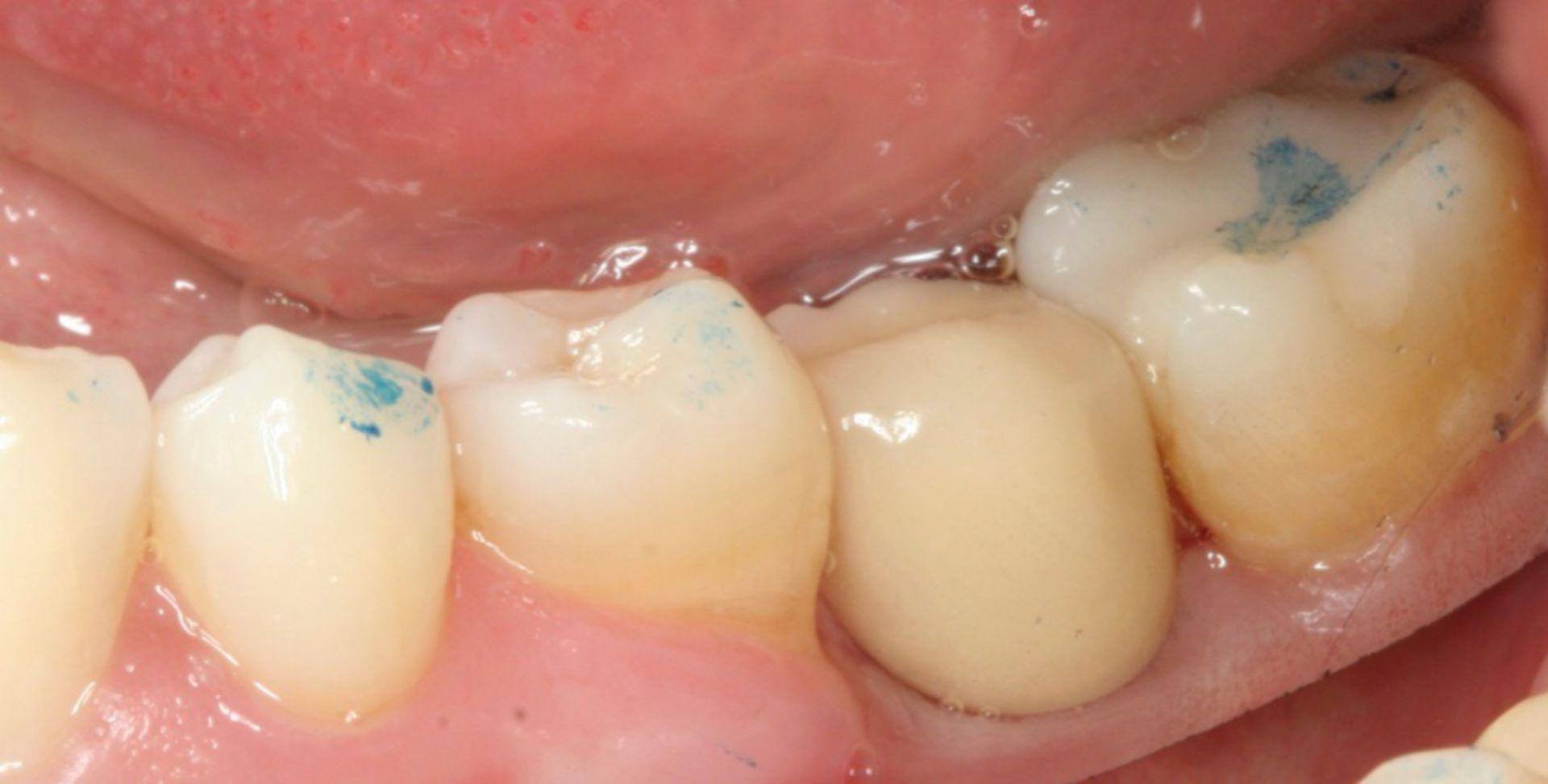 Prosthetics tooth 36