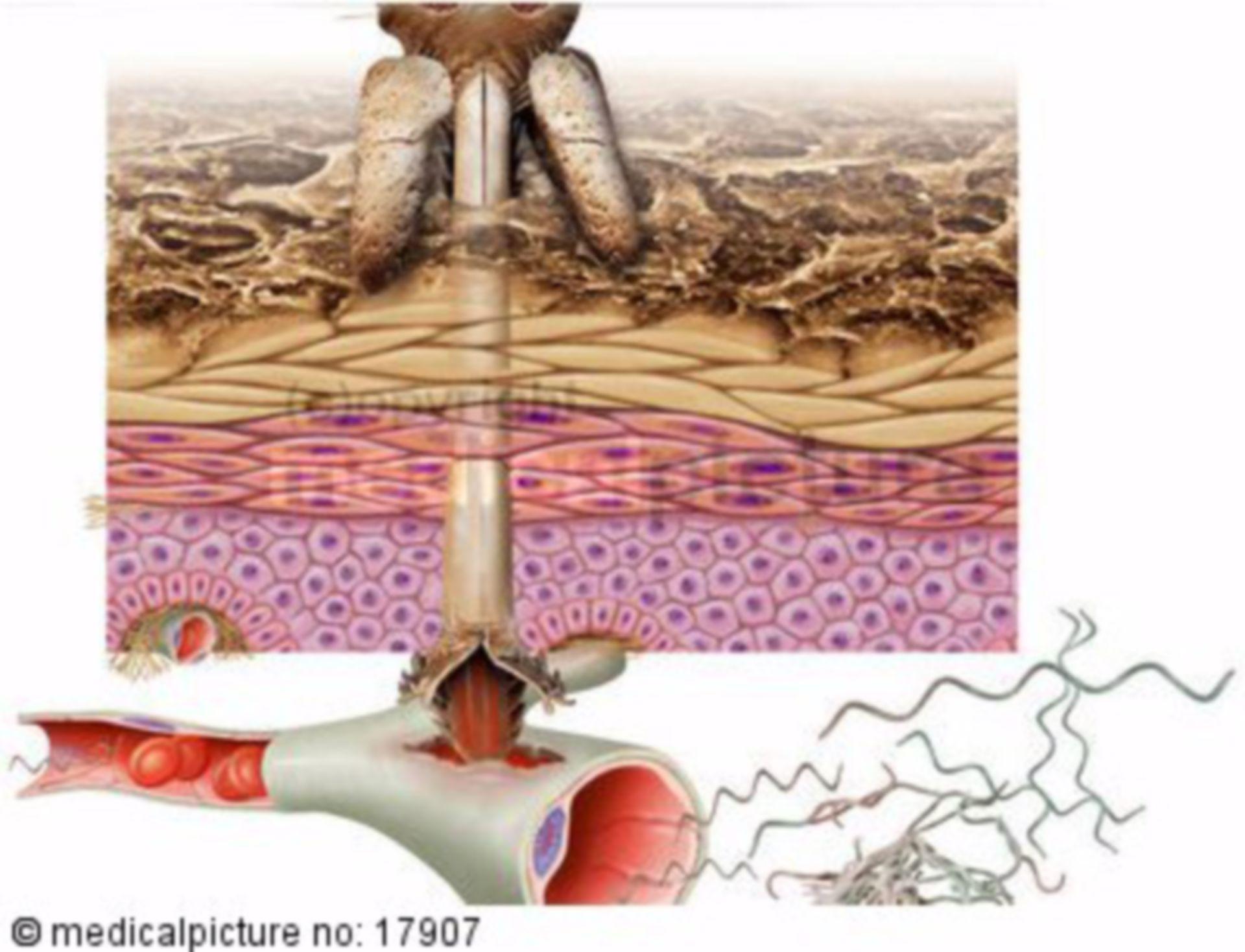 Malattia di Lyme - Borreliosi