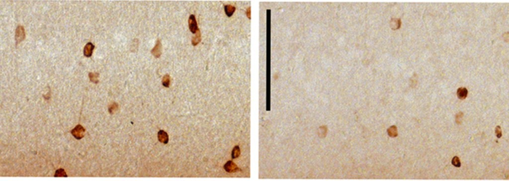 Die Neuronen aus dem präfrontalen Cortex von heranwachsenden, normal ernährten Mäusen (links) produzieren mehr Reelin (braun) als die entsprechenden Neuronen von fettreich ernährten Mäusen (rechts). © U. Meyer