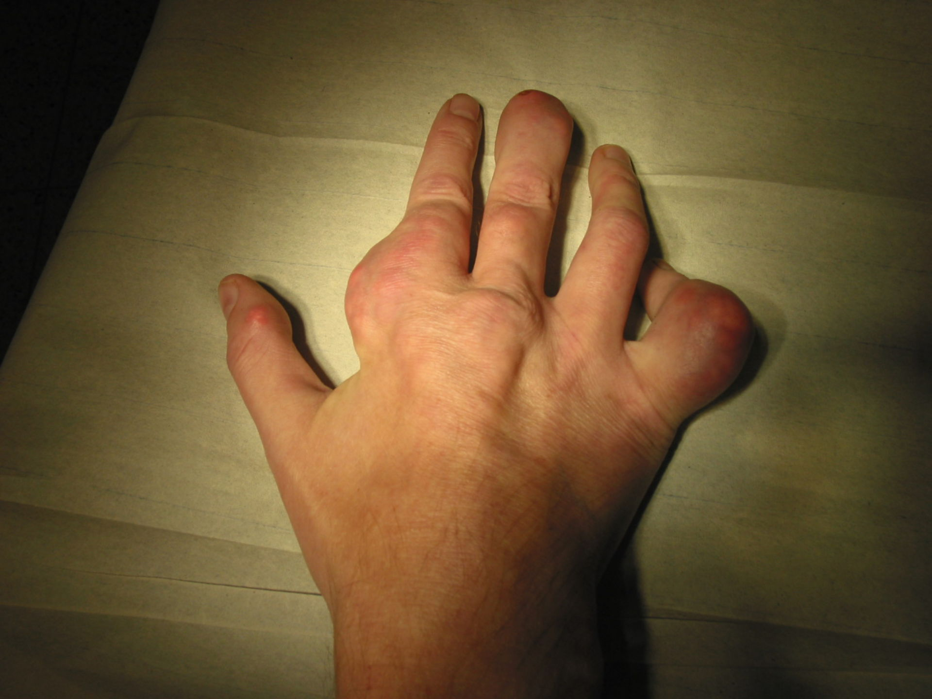 Arthritis urika (gout) in the hand (3)
