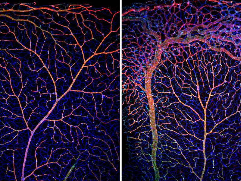 Sich entwickelnde Blutgefäße in der Netzhaut von Mäusen: Bei Kontrolltieren (links) weist das Gefäßnetzwerk einen hohen Organisationsgrad auf. Fehlt den Tieren das FOXO1-Gen, läßt sich ein überschießendes und anhaltendes Wachstum von Blutgefäßen beobachten. Insbesondere der venöse Teil des Gefäßnetzwerkes ist durch die genetische Inaktivierung von FOXO1 betroffen und durch eine Zunahme der Gefäßgröße und Dichte gekennzeichnet. Die Farben kennzeichnen verschiedene Blutgefäßmarker. © MPI für Herz- und Lungenforschung