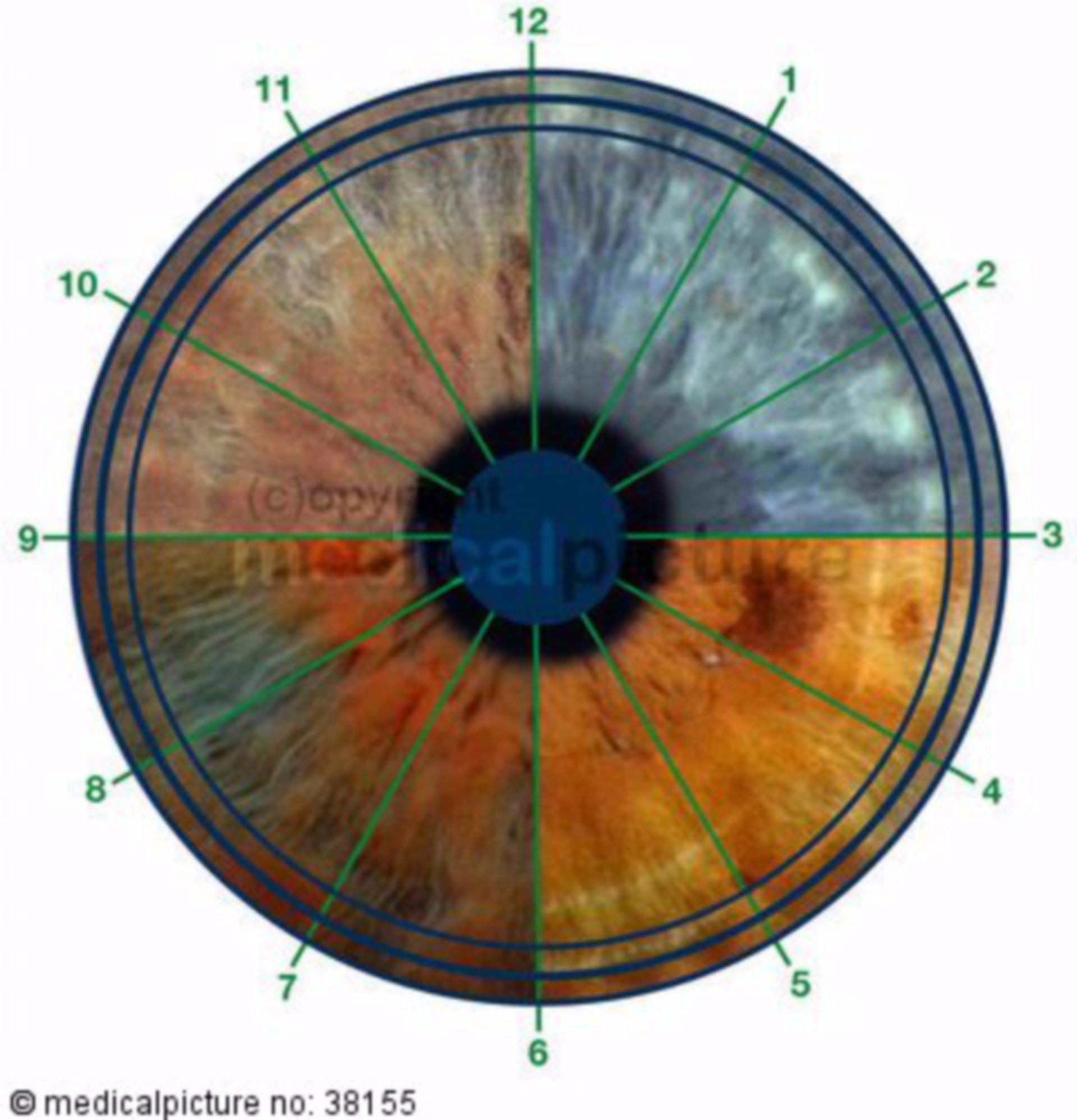Irisdiagnostik, iris diagnostics