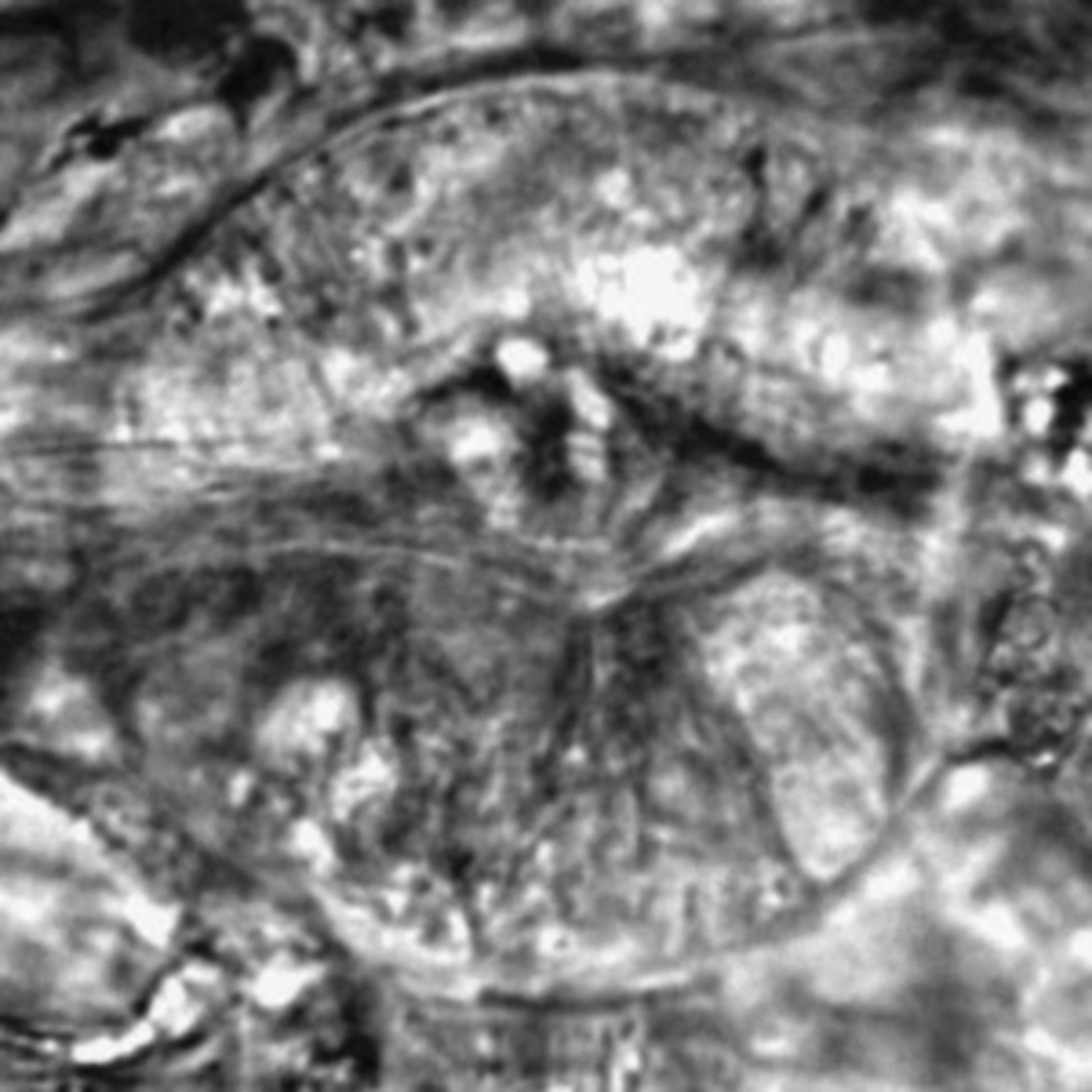 Caenorhabditis elegans - CIL:2626