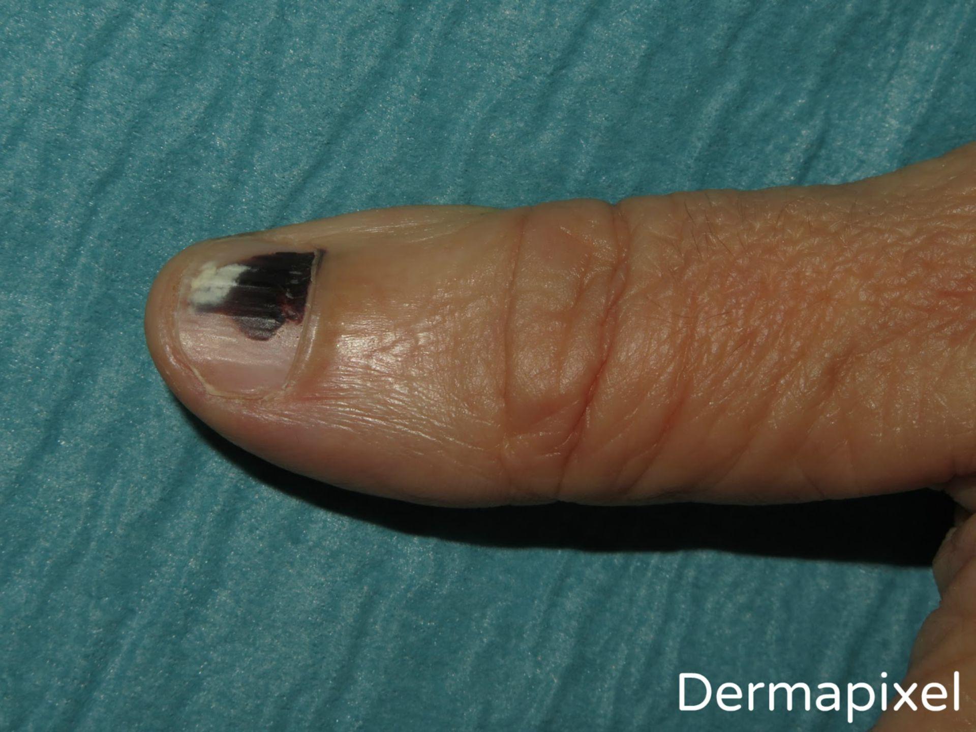 Una uña negra (1)