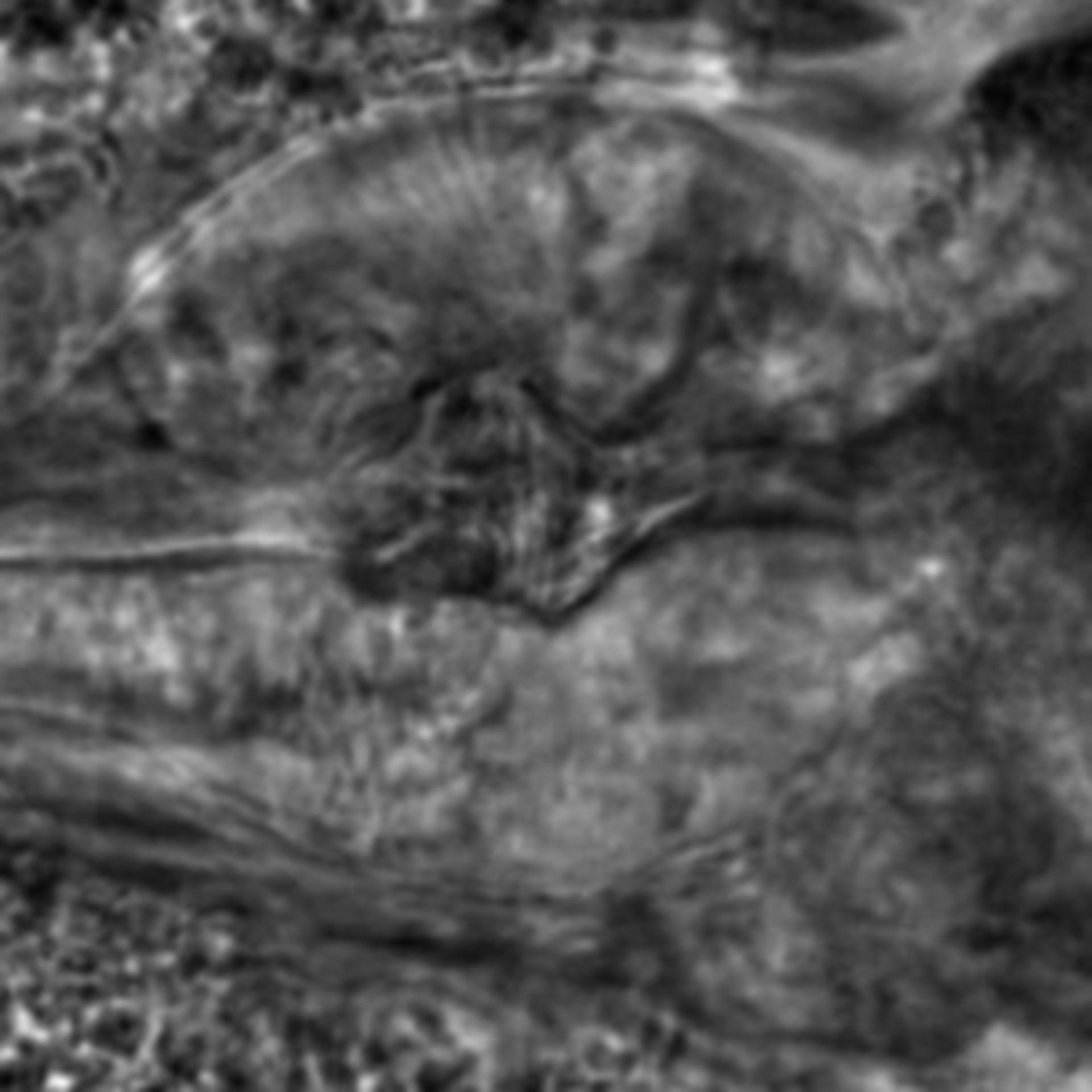 Caenorhabditis elegans - CIL:2282