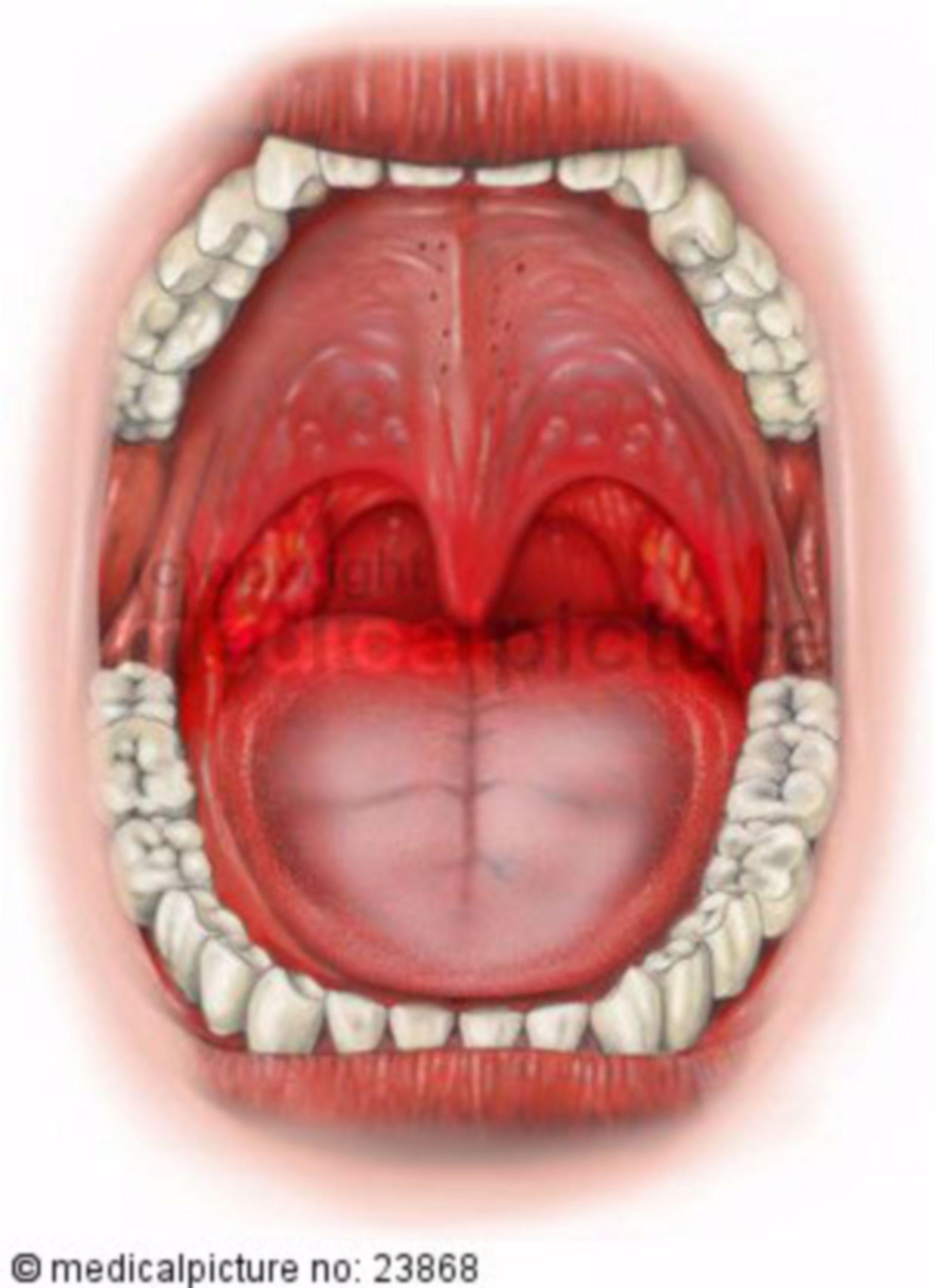 Tonsillite