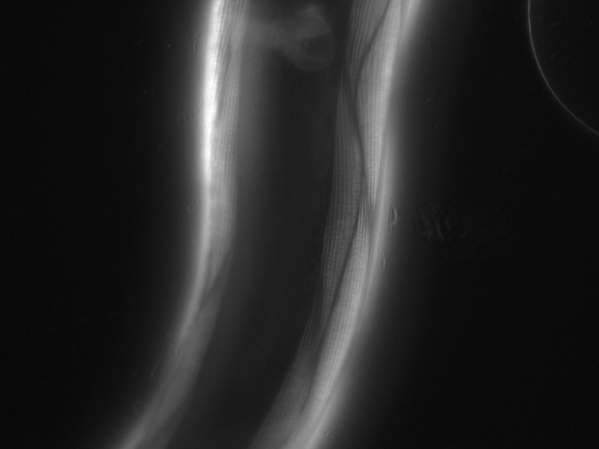 Caenorhabditis elegans (Actin filament) - CIL:1081