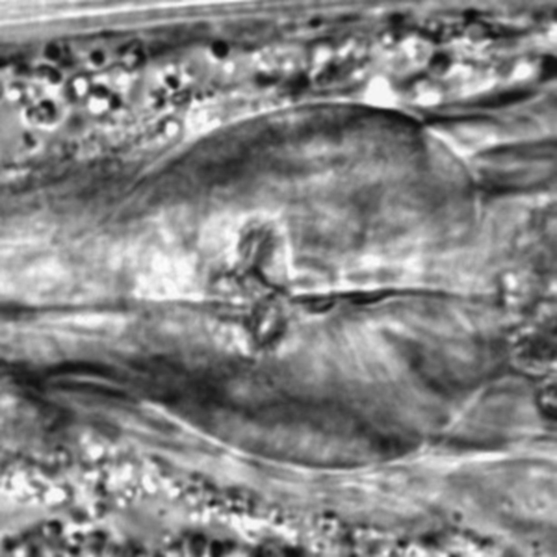 Caenorhabditis elegans - CIL:1793