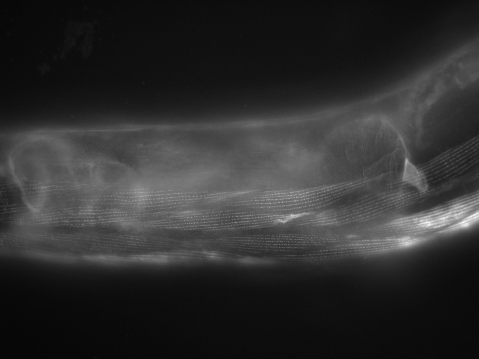 Caenorhabditis elegans (Actin filament) - CIL:1178