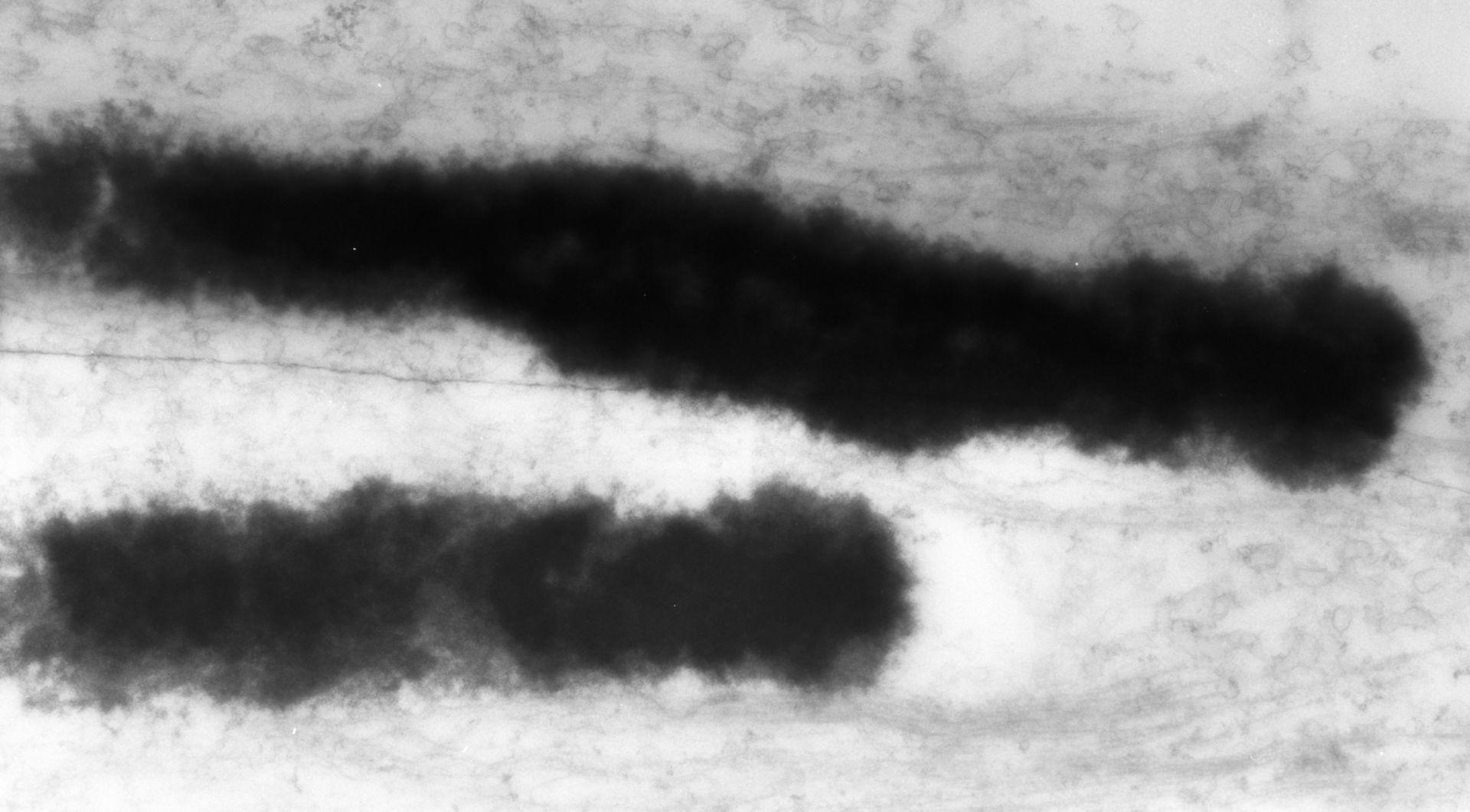 Haemanthus katharinae (Nuclear chromosome) - CIL:11916