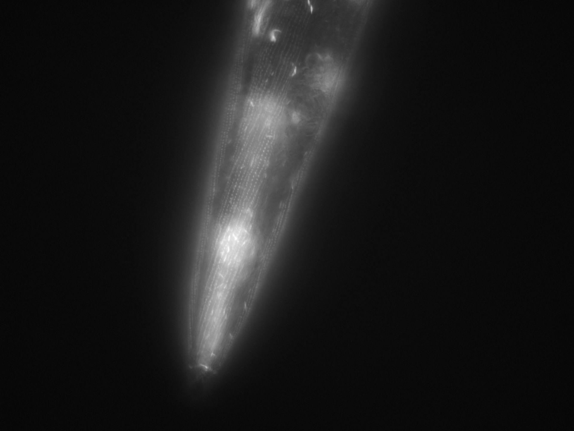 Caenorhabditis elegans (Actin filament) - CIL:1017