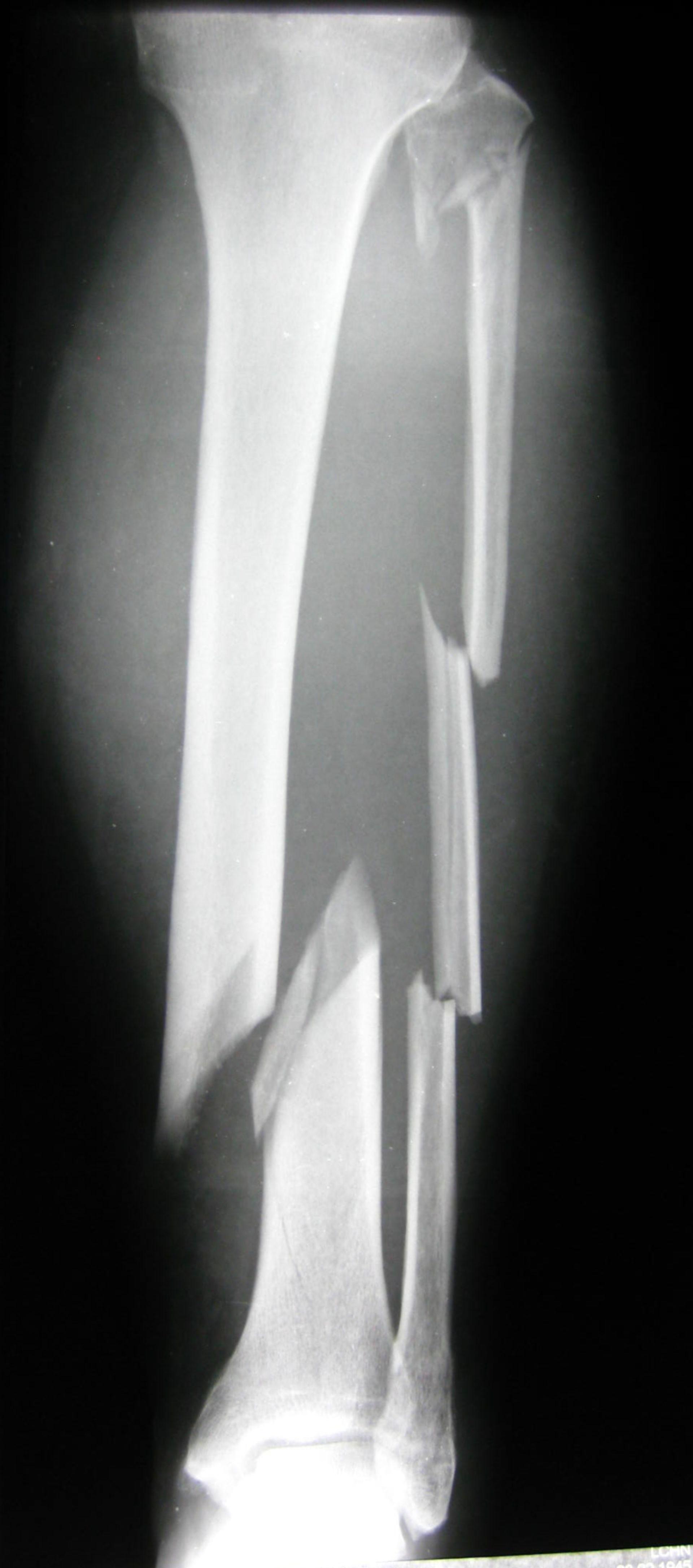 Unterschenkelfraktur mit 4 Etagen- Fraktur der Fibula