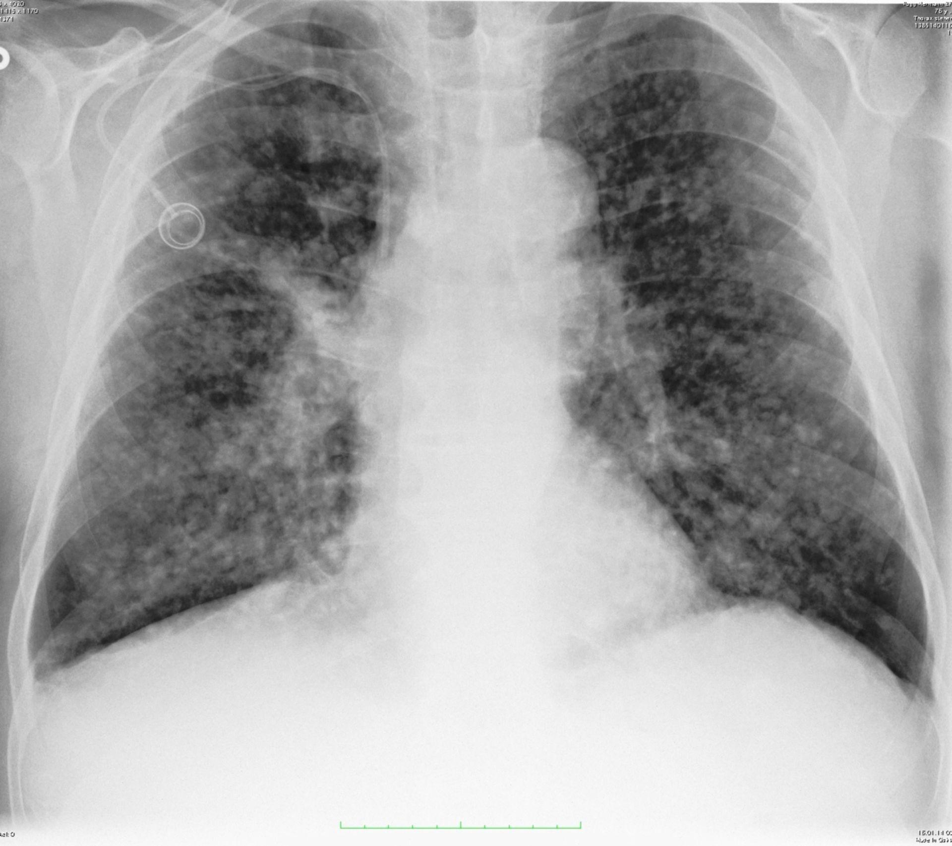 Lungenmetastasen bei CCC