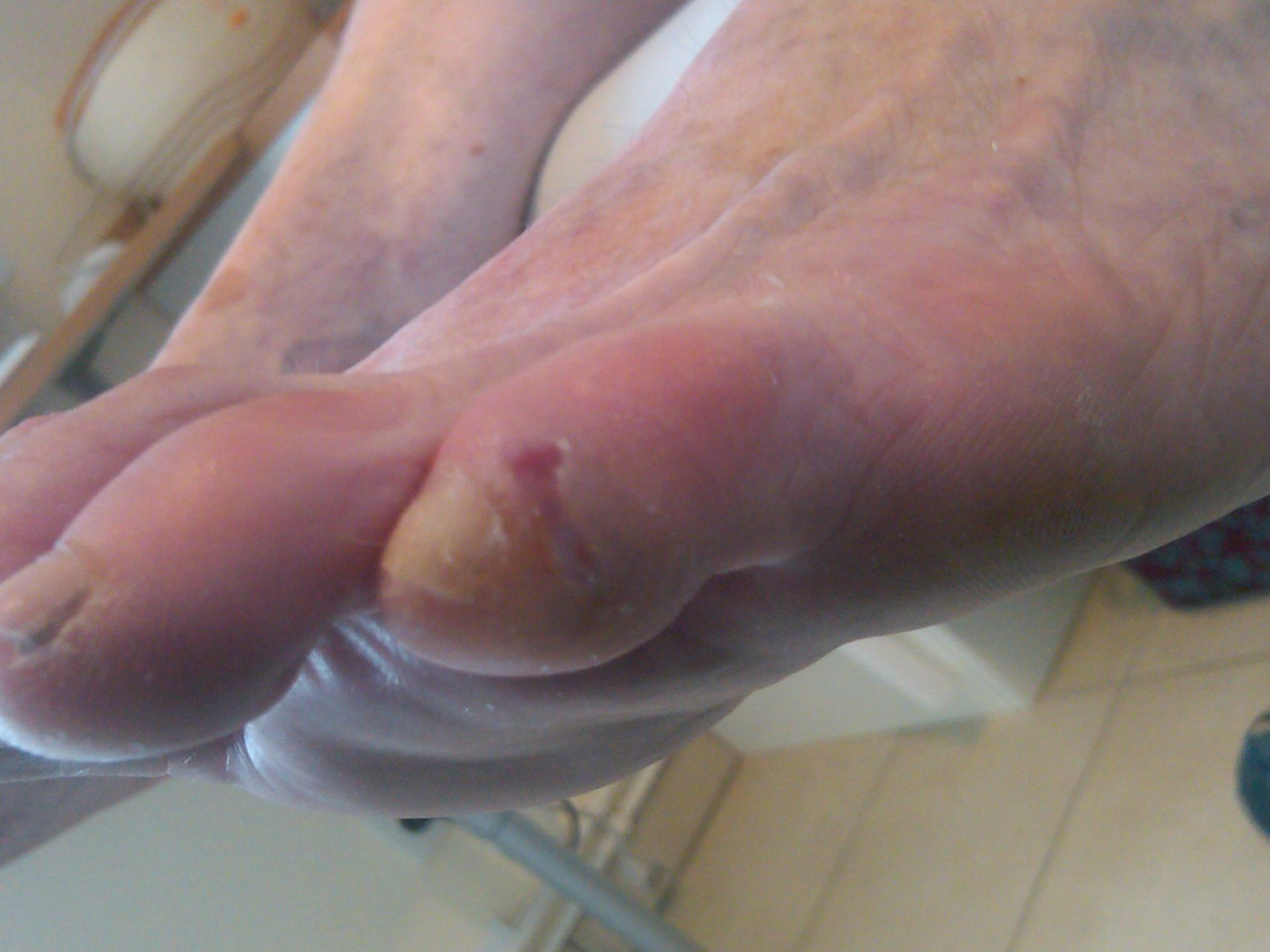 Toe with lesion
