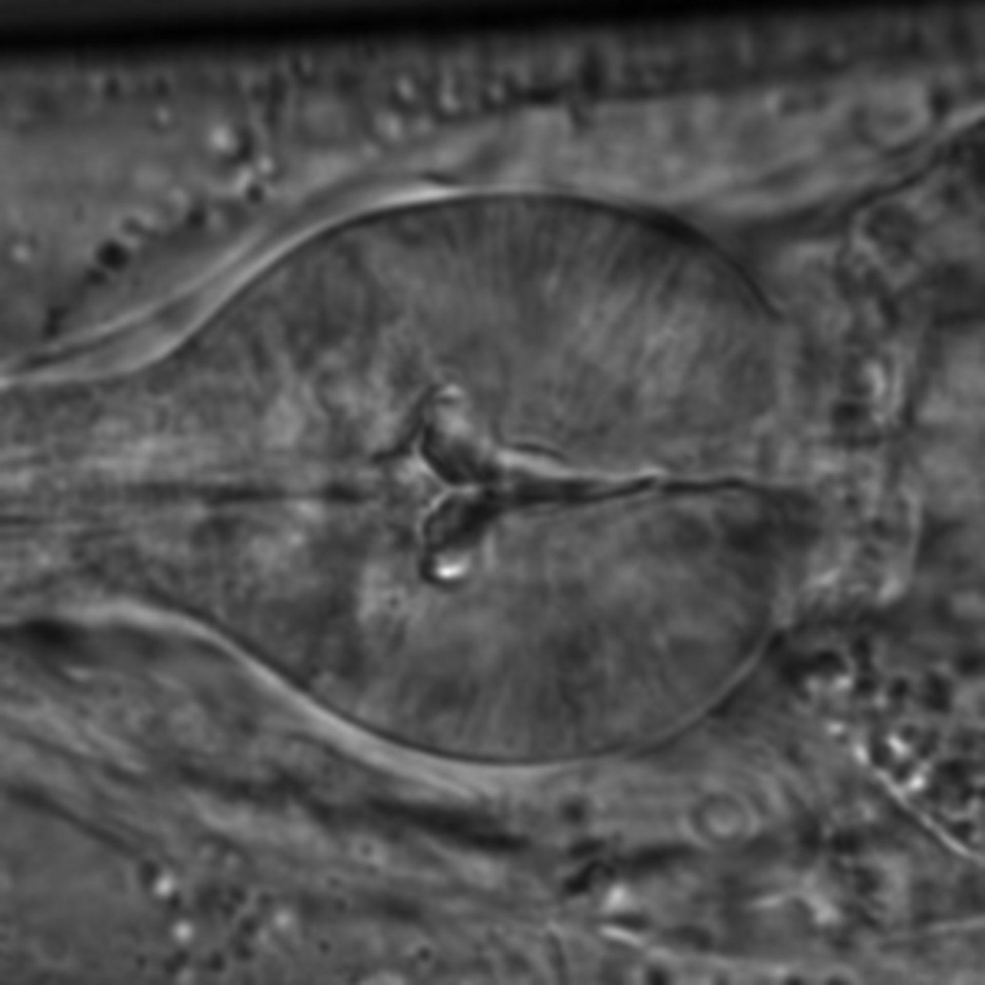 Caenorhabditis elegans - CIL:1597