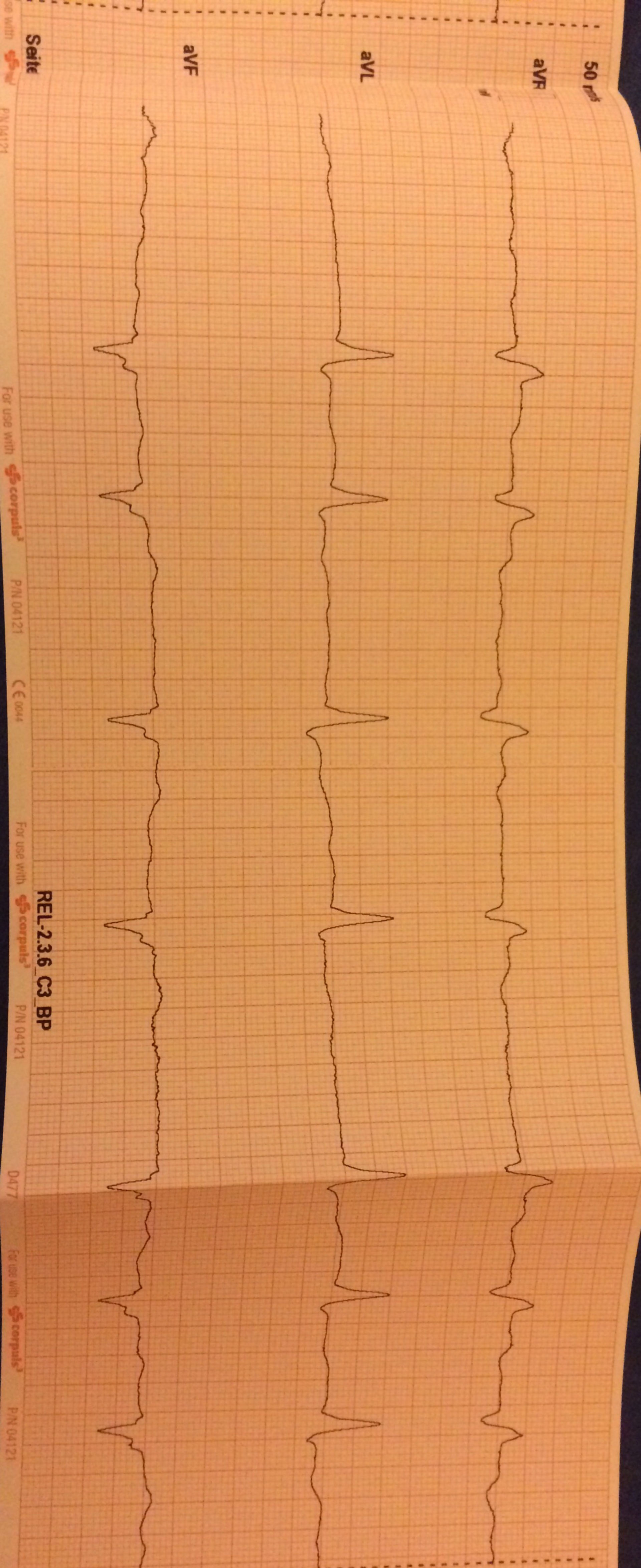 EKG Aufnahme