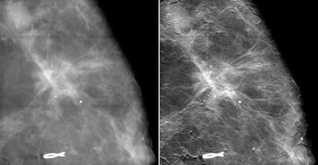 Der Vergleich von Röntgenaufnahmen von Brustgewebe mit einer konventionellen Mammografie sowie der neuen Mammografiemethode zeigt eine deutliche Verbesserung der Bildschärfe und damit der Sichtbarkeit der Ausläufer des Tumors (hell). © Paul Scherrer Institut/Kantonsspital Baden