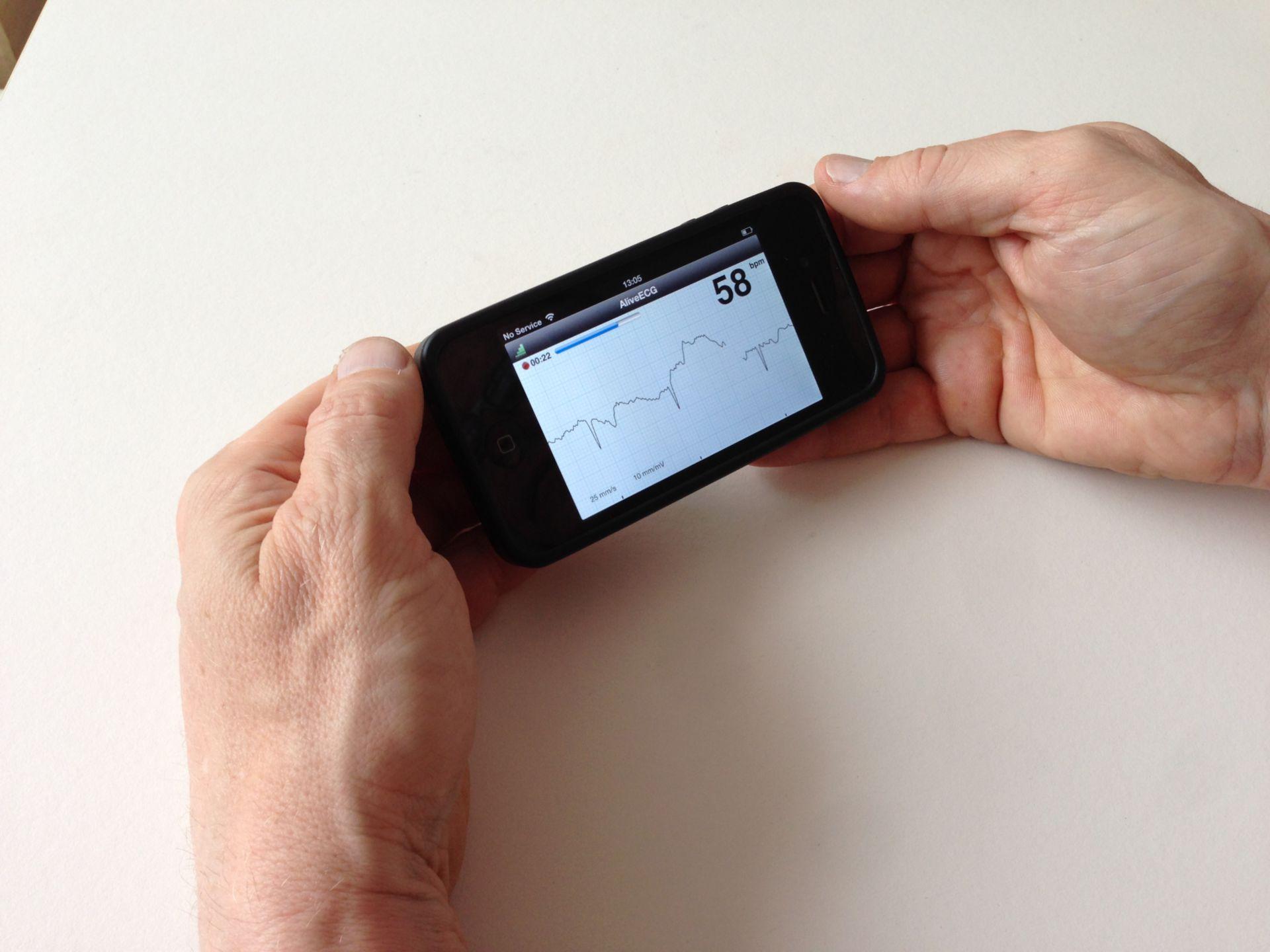 ECG per iPhone - AliveCor (2)