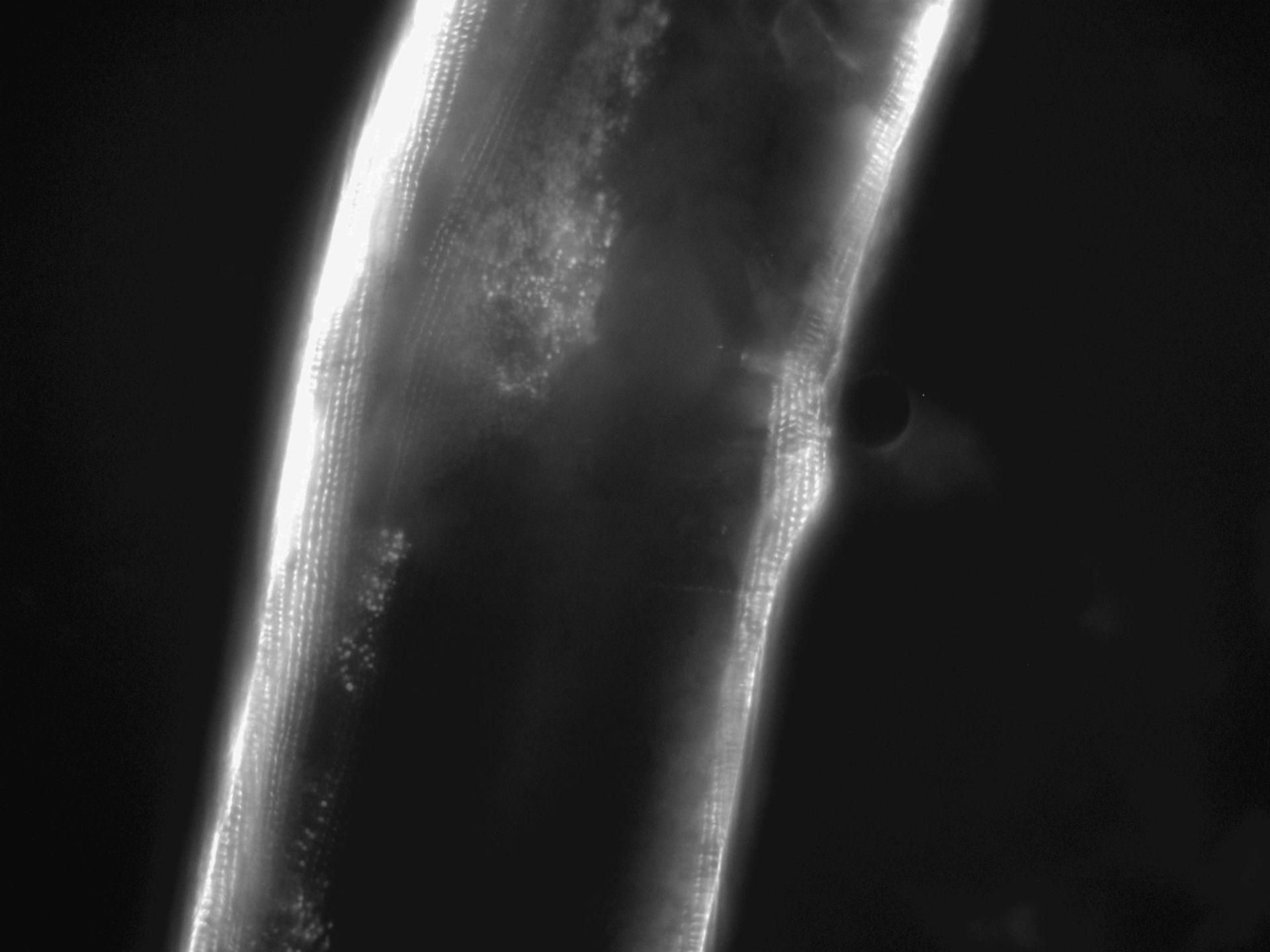 Caenorhabditis elegans (Actin filament) - CIL:1110