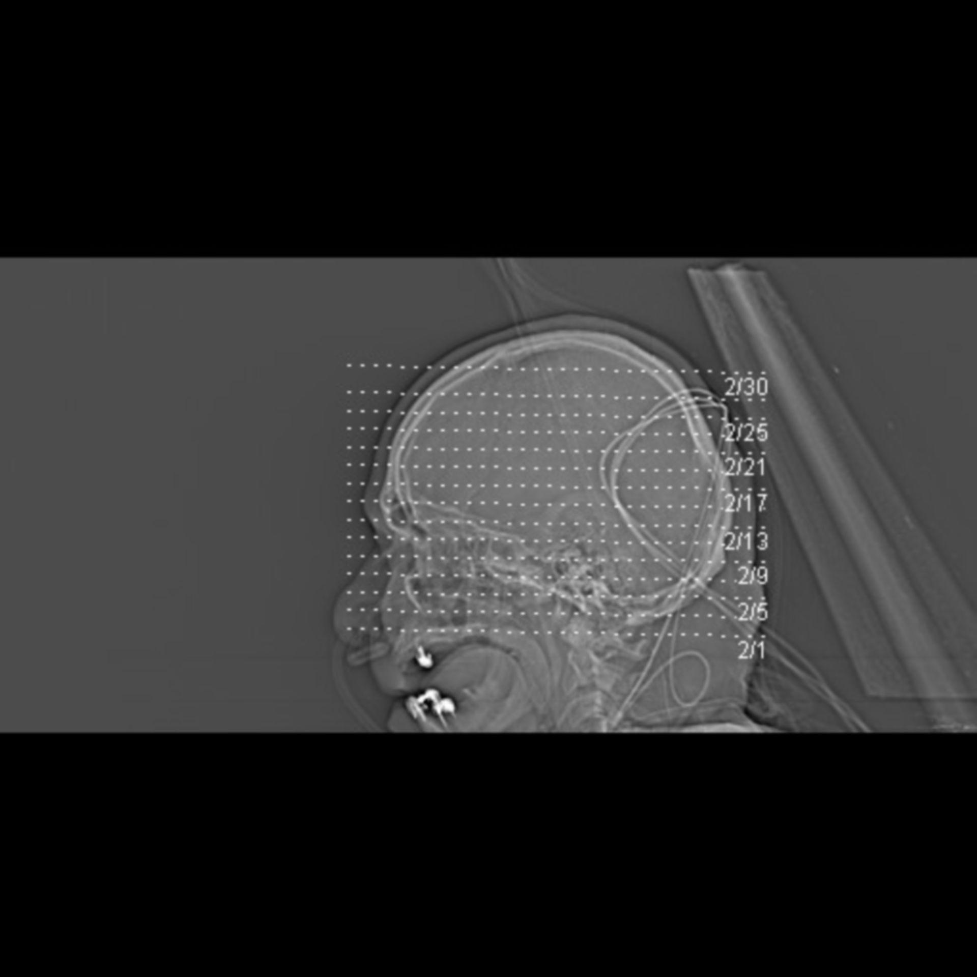 Gehirnblutung+Pneumonie 2