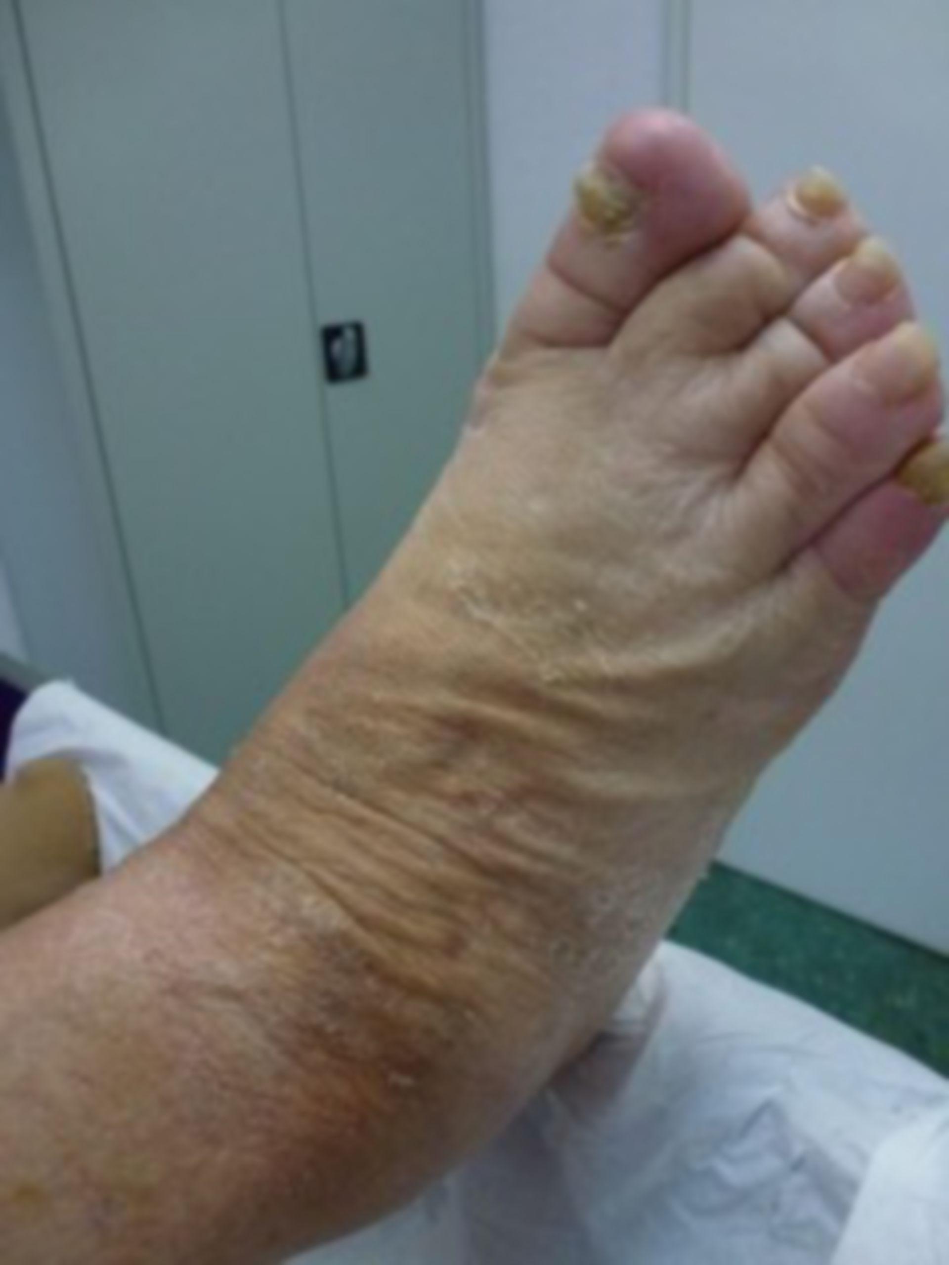 Úlcera de la pierna - abierta por 18 meses (13)