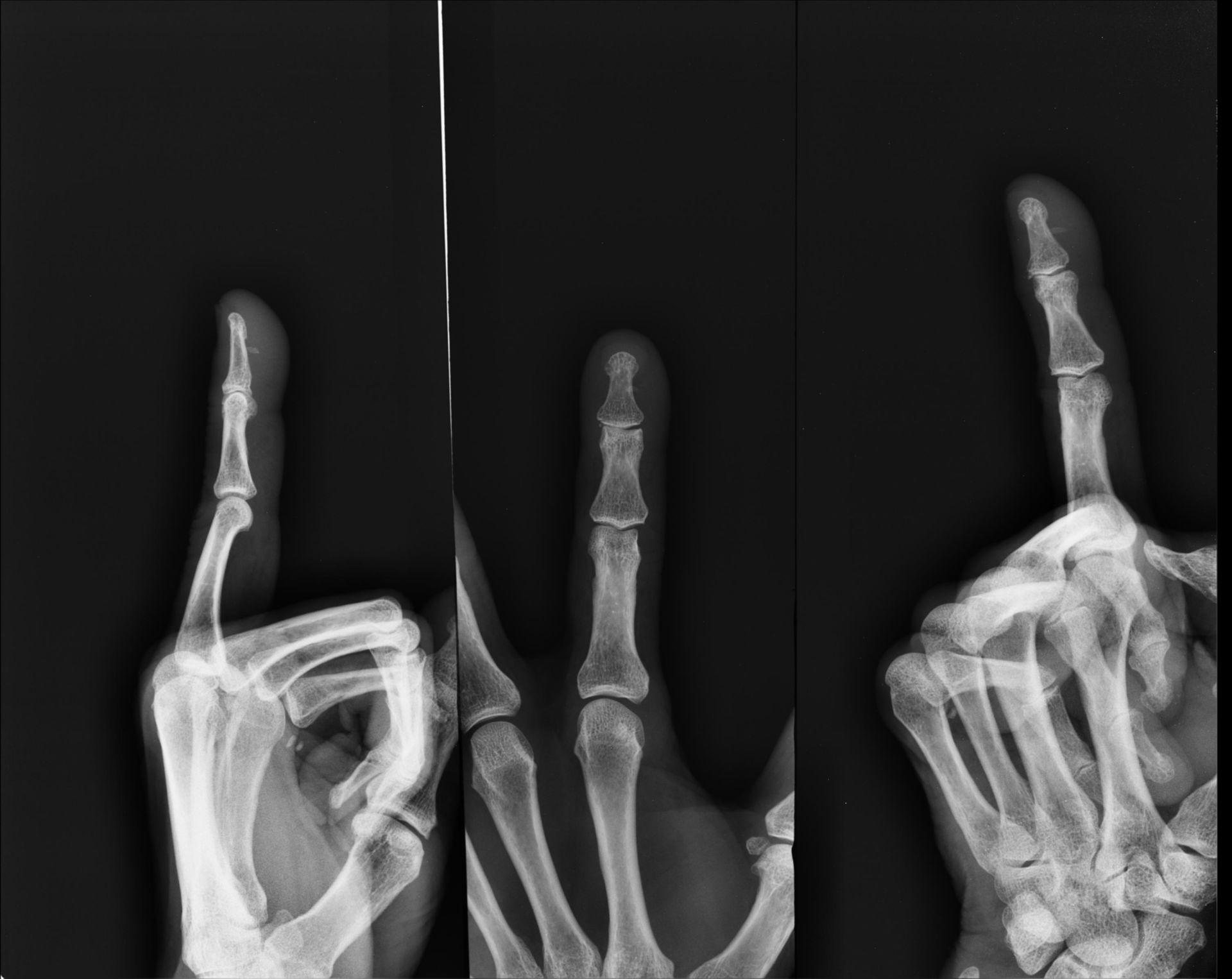 Schegge di vetro nella mano