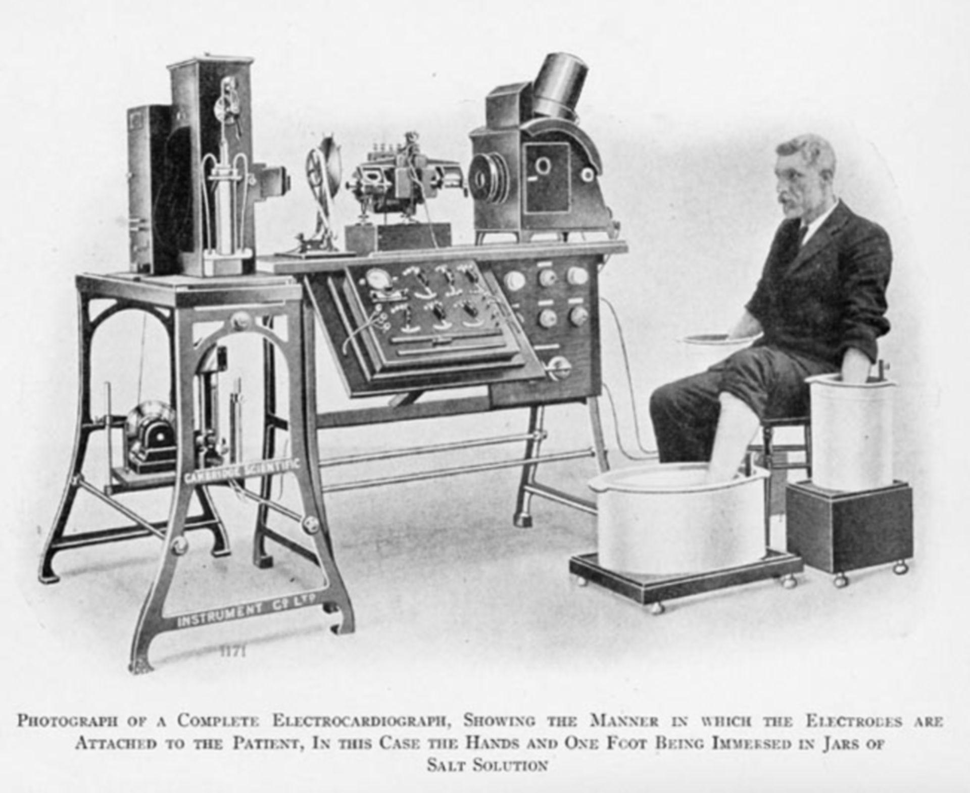 Historisches EKG (1911)