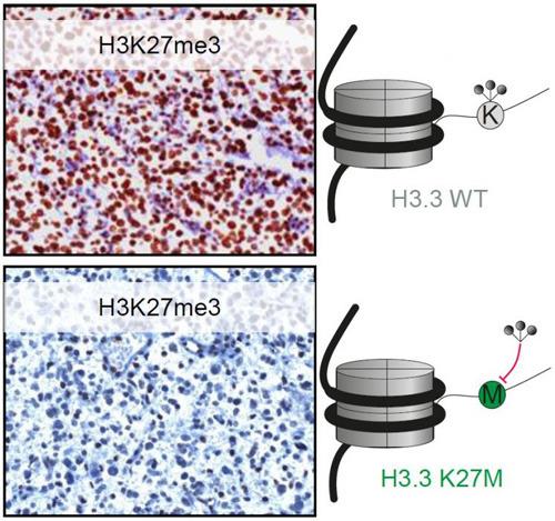 Ergebnisse des Immuntests IHC für H3K27me3 in einem Tumor ohne K27M Mutation (oben: viel braune Färbung zeigt viel Methylierung) und einem Tumor mit K27M Mutation (unten: wenig braune Färbung bedeutet wenig Methylierung). Das rechte Schema zeigt, dass Lysin (oben) methyliert ist, Methionin in der Mutante unten aber nicht methyliert werden kann. © dkfz.de