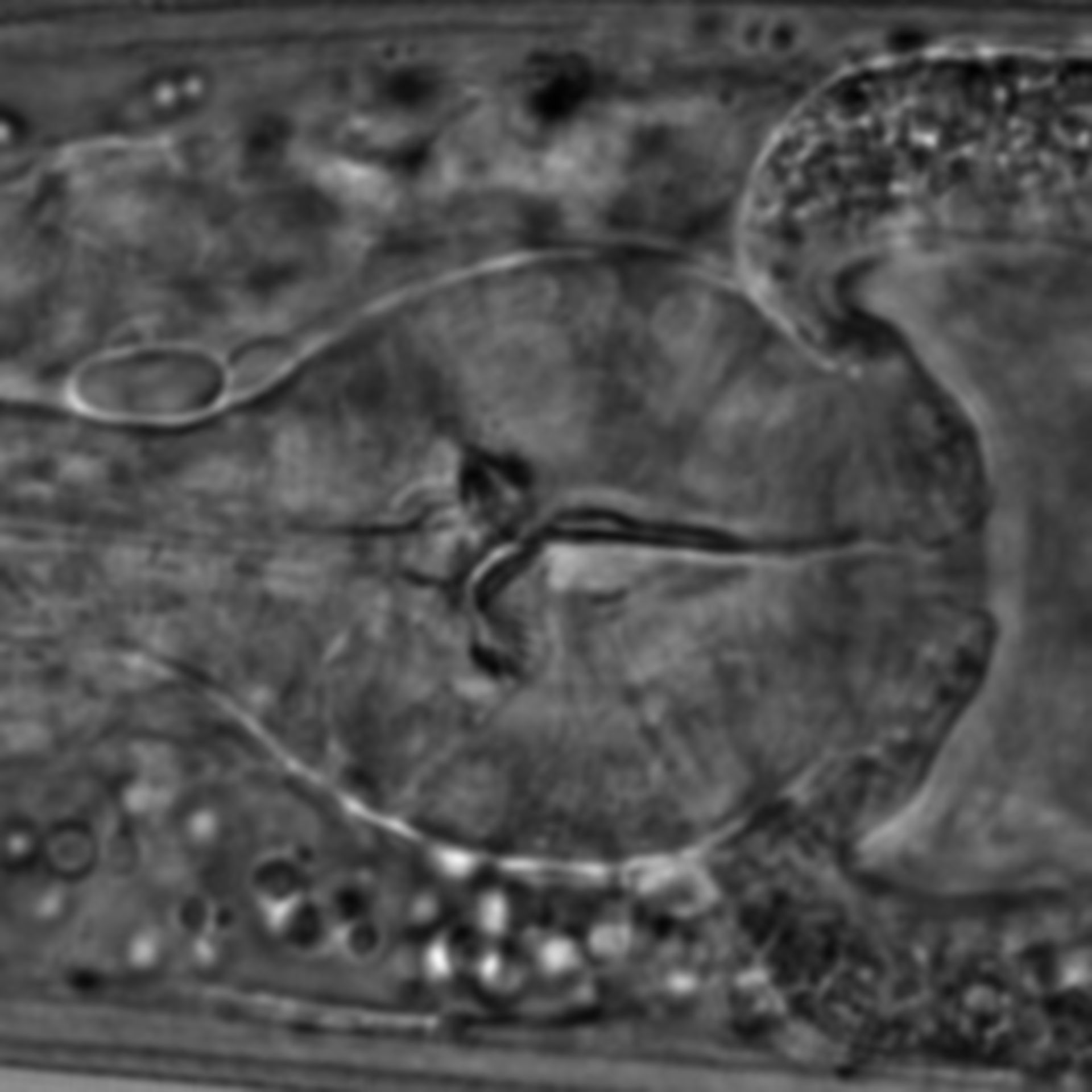 Caenorhabditis elegans - CIL:1623