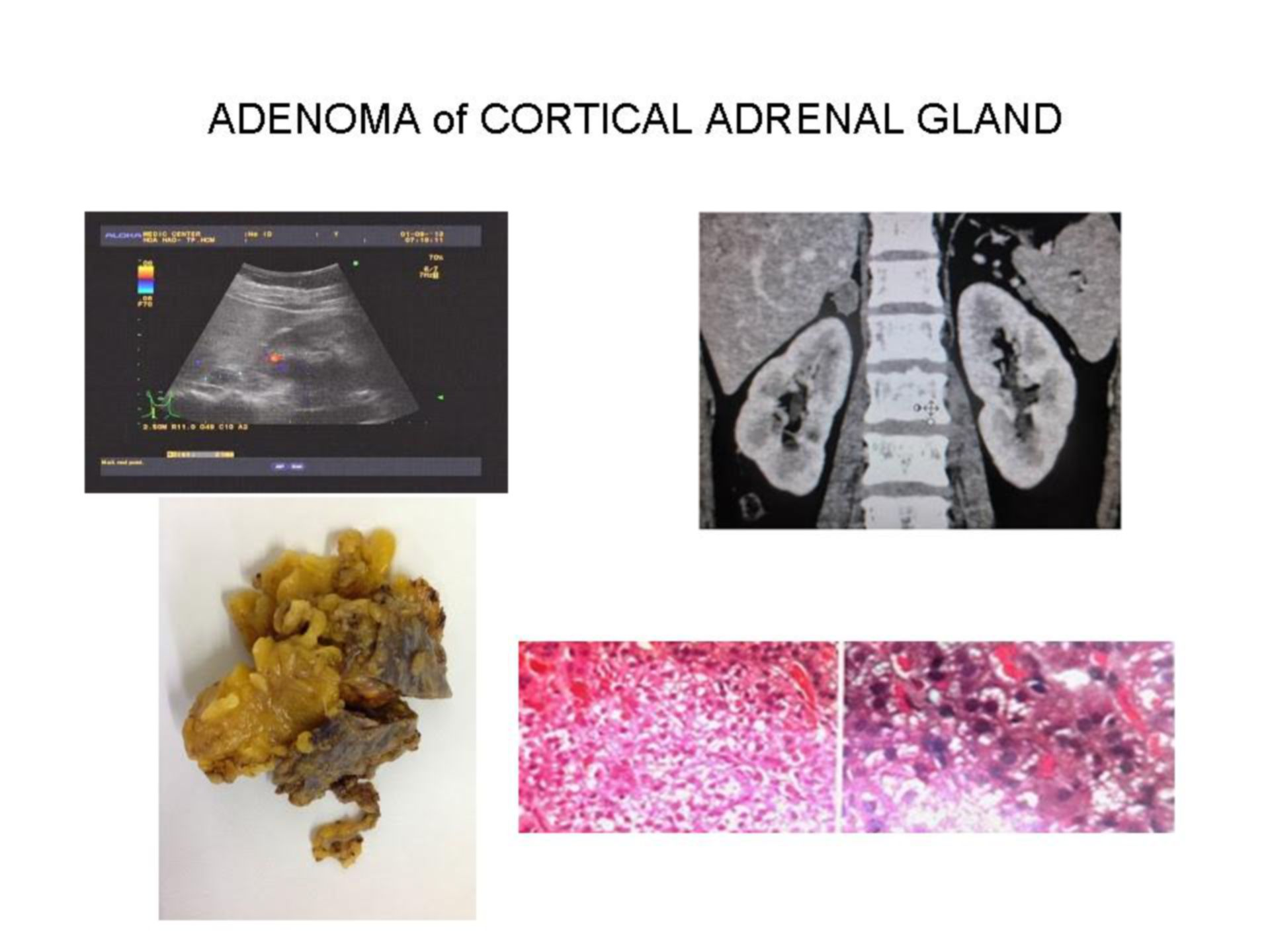 Adenoma of cortical adrenal gland