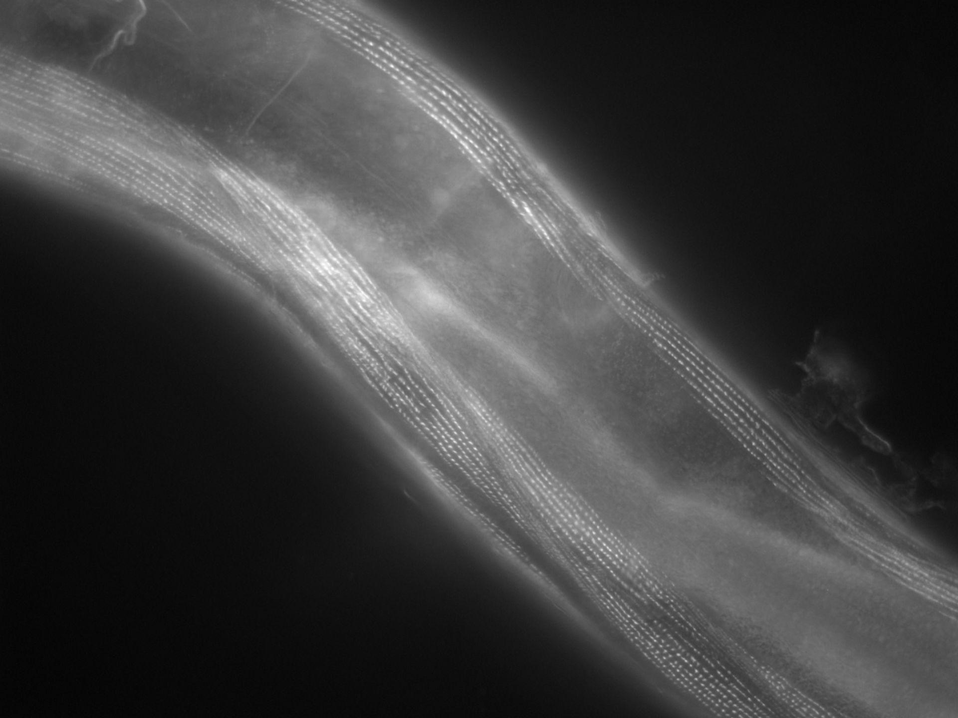 Caenorhabditis elegans (Actin filament) - CIL:1123