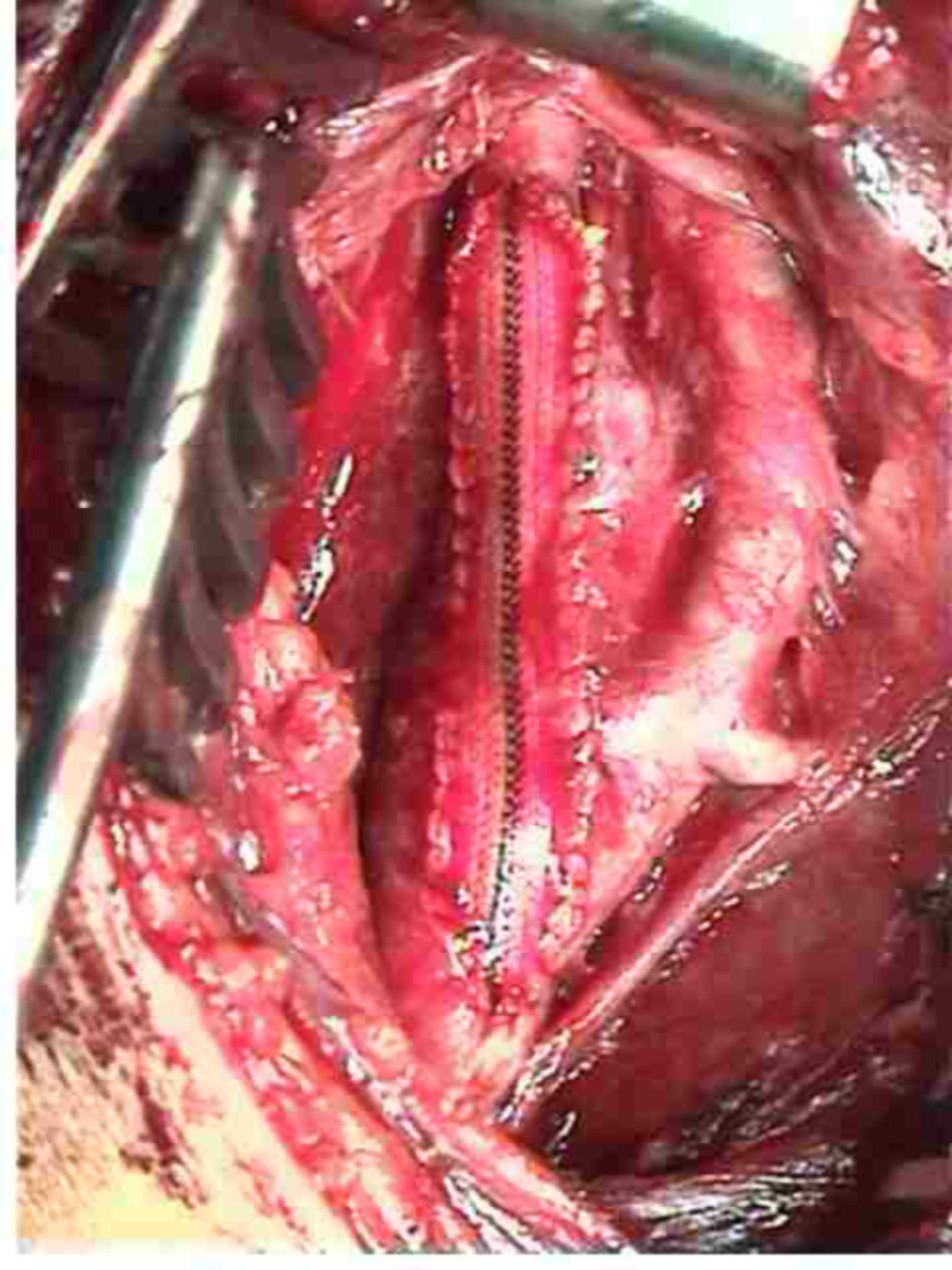 Cartotisstenose TEA (Thrombendarteriektomie) Schritt 5 nach EInnähen des Patches